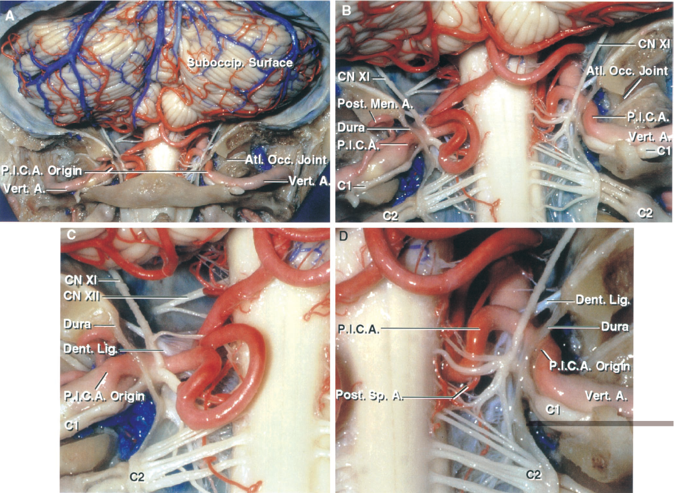 FIGURE 2.21. Bilateral PICAs with an extradural origin. A, both PICAs arise outside the dura as the vertebral arteries course behind the atlanto-occipital joints. The PICAs enter the dura at the level of the dorsolateral medulla and do not have an anterior medullary or a full lateral medullary segment. The left PICA loops downward in front of the posterior arch of the atlas. B, enlarged view. The left PICA gives off a posterior meningeal artery, penetrates the dura by passing through the dural cuff around the vertebral artery, and loops downward behind the accessory nerve and the C1 and C2 roots before ascending to enter the cerebellomedullary fissure. The right PICA passes through the dura and courses along the side of the medulla in front of the rootlets of the accessory nerve. C, the left PICA penetrates the dural cuff with the vertebral artery and the C1 nerve root. The accessory nerve passes posterior to both the vertebral artery and the PICA. The rostral attachment of the dentate ligament ascends between the PICA and the vertebral artery to attach to the dura at the level of the foramen magnum. D, the C1 nerve root passes through the dural cuff with the vertebral artery and the PICA. The accessory nerve ascends posterior to both the vertebral artery and PICA. A small posterior spinal artery arises from the PICA and courses along the dorsolateral aspect of the spinal cord. A., artery; Atl., atlanto; CN, cranial nerve; Dent., dentate; Lig., ligament; Men., meningeal; Occ., occipital; P.I.C.A., posteroinferior cerebellar artery; Post., posterior; Sp., spinal; Suboccip., suboccipital; Vert., vertebral.