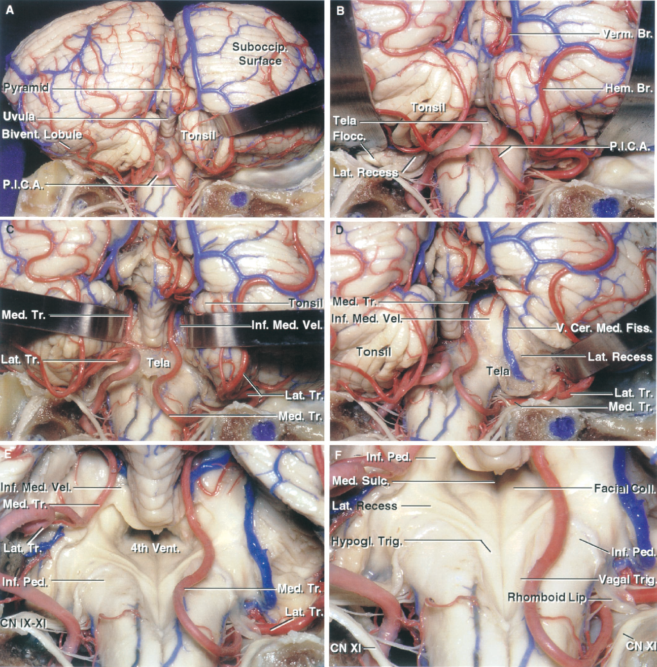 FIGURE 2.22. PICA relationships. A, the left PICA is larger than the right. Both PICAs enter the cerebellomedullary fissure, pass around the tonsils, and exit the fissure to supply the suboccipital surface. The natural cleft between the right tonsil and the biventral lobule has been opened. The tonsil is attached to the remainder of the cerebellum by the tonsillar peduncle, a white matter bundle along its superolateral margin. All of the other margins of the tonsils are free margins. B, enlarged view. The left biventral lobule has been elevated to expose the flocculus protruding from the margin of the lateral recess. C, the tonsils have been retracted laterally to expose the PICAs coursing in the cerebellomedullary fissure. The right PICA bifurcates into medial and lateral trunks before reaching the cerebellomedullary fissure. The left PICA bifurcates within the fissure. The medial trunks supply the vermis and adjacent part of the hemisphere and the lateral trunks supply the remainder of the hemisphere. D, the right tonsil has been removed to expose the lateral recess and bifurcation of the right PICA into medial and lateral trunks. E, both tonsils and the tela have been removed to expose the ventricular floor and walls. The left PICA divides into its trunks within the cerebellomedullary fissure. The inferior medullary velum has been preserved, but is a thin layer that can be opened, if needed, to increase the exposure of the fourth ventricle. F, enlarged view showing the relationship of the PICAs to the fourth ventricle. The PICAs, after passing between the rootlets of the accessory rootlets course along the caudolateral margin of the fourth ventricle on the inferior cerebellar peduncle before entering the cerebellomedullary fissure. The left PICA has been reflected laterally. The facial colliculus is in the upper and hypoglossal and vagal nuclei are in the lower part of the floor. Bivent., biventral; Br., branch; Cer. Med., cerebellomedullary; CN, cranial nerve; C