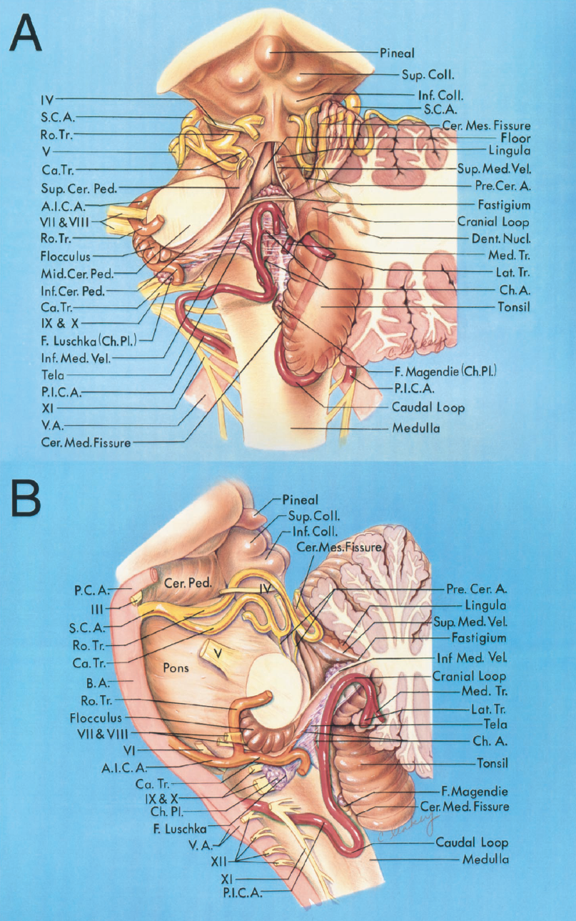 FIGURE 2.3. Relationships of the cerebellar arteries. A, posterior view with the left and part of the right half of the cerebellum removed. B, lateral view with the left half of the cerebellum removed to expose the fourth ventricle. The SCAs (yellow) are intimately related to the superior half of the fourth ventricular roof and the cerebellomesencephalic fissure; the AICAs (orange) are intimately related to the cerebellopontine fissures and the lateral recesses; and the PICAs (red) are intimately related to the caudal half of the roof and the cerebellomedullary fissure. The SCAs pass around the midbrain above the trigeminal nerve and divide into rostral and caudal trunks. The branches of these trunks loop deeply into the cerebellomesencephalic fissure and give off the precerebellar arteries, which pass along the superior cerebellar peduncles to the dentate nuclei. The PICAS arise from the vertebral arteries and pass between the glossopharyngeal, vagus, and accessory nerves to reach the cerebellomedullary fissure. After passing near the caudal pole of the tonsils, where they form a caudal loop, they ascend through the cerebellomedullary fissure, where they are intimately related to the caudal part of the ventricular roof. They pass around the rostral pole of the tonsil and through the telovelotonsillar cleft, where they form a cranial loop. In their course around the tonsils, they divide into medial and lateral trunks. They give off branches to the dentate nuclei near the superior pole of the tonsils. The AICAs arise from the basilar artery and pass near or between the facial and vestibulocochlear nerves and are intimately related to the cerebellopontine fissures, the flocculi, and the lateral recesses. The AICAs divide into rostral and caudal trunks before reaching the facial and vestibulocochlear nerves. The rostral trunk passes between the nerves and along the middle cerebellar peduncle near the cerebellopontine fissure. The caudal trunk passes below the nerves an