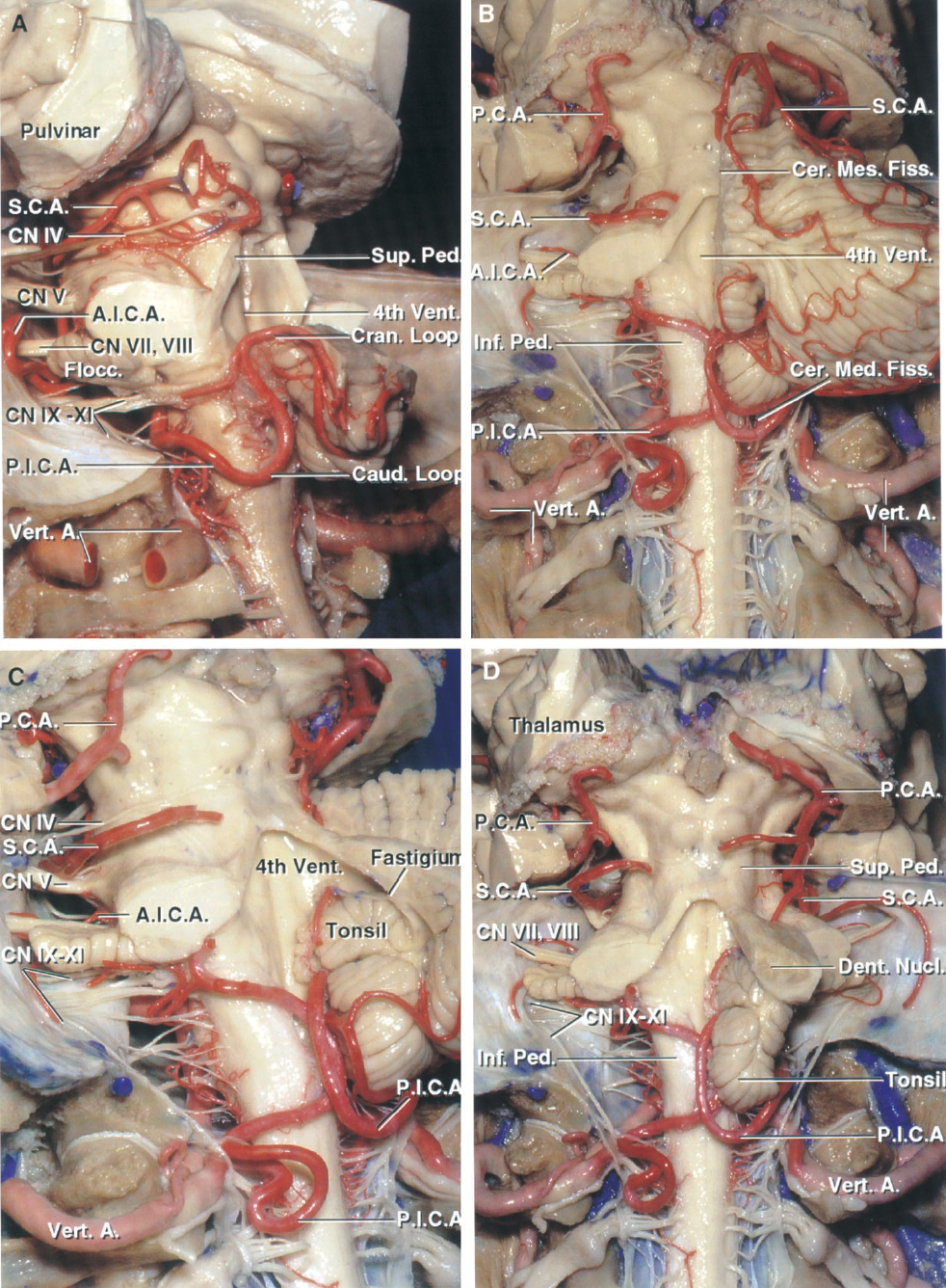 FIGURE 2.4. A–D. Cerebellar arteries, brainstem, and cerebellar-brainstem fissures. A, posterolateral view. The SCA passes around the midbrain to enter the cerebellomesencephalic fissure, where it sends perforating branches into the posterior midbrain below a line between the superior and inferior colliculi, and down the superior peduncle to the dentate nucleus. The AICA loops around the flocculus and the facial and vestibulocochlear nerves. The left PICA passes between the rootlets of the nerves entering the jugular foramen and turns caudally around the lower pole of the left tonsil, which has been removed, and then ascends to form a cranial loop at the upper pole of the tonsil bordering the inferior half of the ventricular roof. B, another specimen. The left half of the cerebellum has been removed. The SCA passes around the midbrain below the PCA in the lower part of the ambient and quadrigeminal cisterns, enters the cerebellomesencephalic fissure, and loops over the posterior lip of the fissure to supply the tentorial surface. The PICA arises from the vertebral artery, passes around the medulla, crosses the inferior cerebellar peduncle, and enters the cerebellomedullary fissure, where it passes along the inferior half of the ventricular roof, and exits the fissure to supply the suboccipital surface. The AICA passes laterally around the pons and above the flocculus. C, enlarged oblique view. The right PICA loops around the caudal and rostral poles of the tonsil. The left PICA dips below the level of the foramen magnum. D, posterior view after removing all of the cerebellum except for the right tonsil and dentate nucleus. A., artery; A.I.C.A., anteroinferior cerebellar artery; Caud., caudal; Cer. Med., cerebellomedullary; Cer. Mes., cerebellomesencephalic; Chor., choroid; CN, cranial nerve; Cran., cranial; Dent., dentate; Fiss., fissure; Flocc., flocculus; Inf., inferior; Mid., middle; Nucl., nucleus; P.C.A., posterior cerebral artery; Ped., peduncle; P.I.C.A., pos