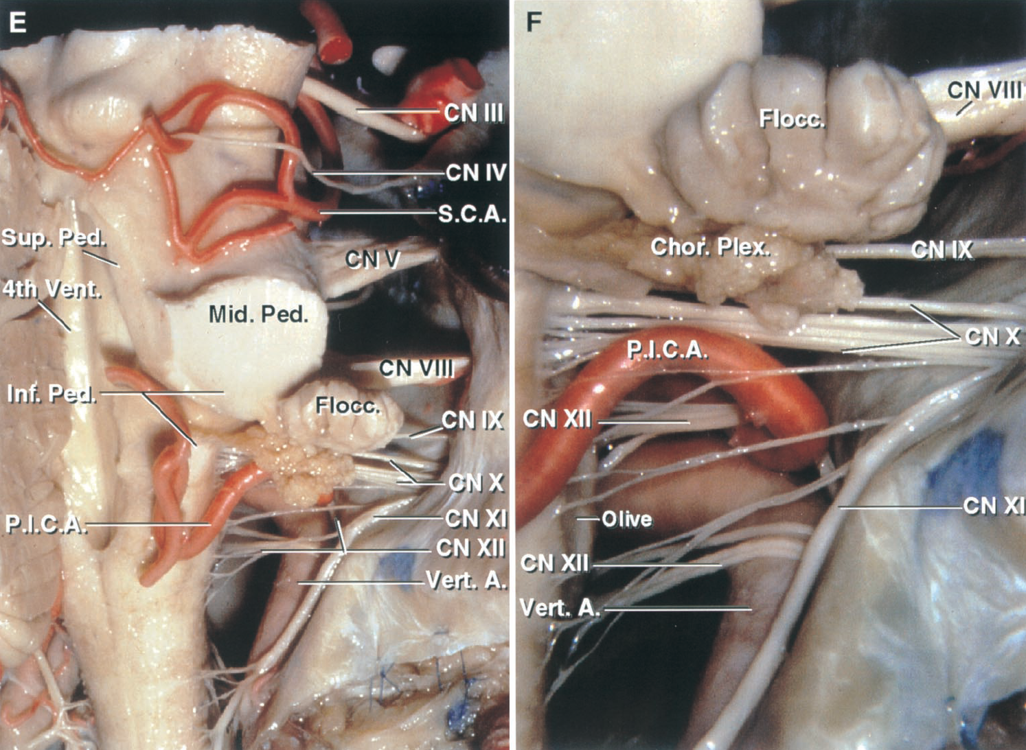 FIGURE 2.4. E and F.Cerebellar arteries, brainstem,and cerebellar-brainstem fissures. E, the SCA passes abovethe trigeminal nerve and enters the cerebellomesencephalic fissure, where it sendsbranches down the superiorpeduncle to the dentatenucleus. The PICA passesbetween the vagus andaccessory nerves and courseson the inferior peduncle toreach the cerebellomedullaryfissure. F, enlarged view ofthe lateral recess. Theflocculus and choroid plexusproject laterally from themargin of the foramen ofLuschka into thecerebellopontine angle,behind the glossopharyngealand vagus nerves and abovethe PICA. The hypoglossalrootlets arises from the medulla in front of the glossopharyngeal and vagus nerves and cross the posterior surface of the vertebral artery. Some hypoglossal rootlets pass above and others below the PICA origin.