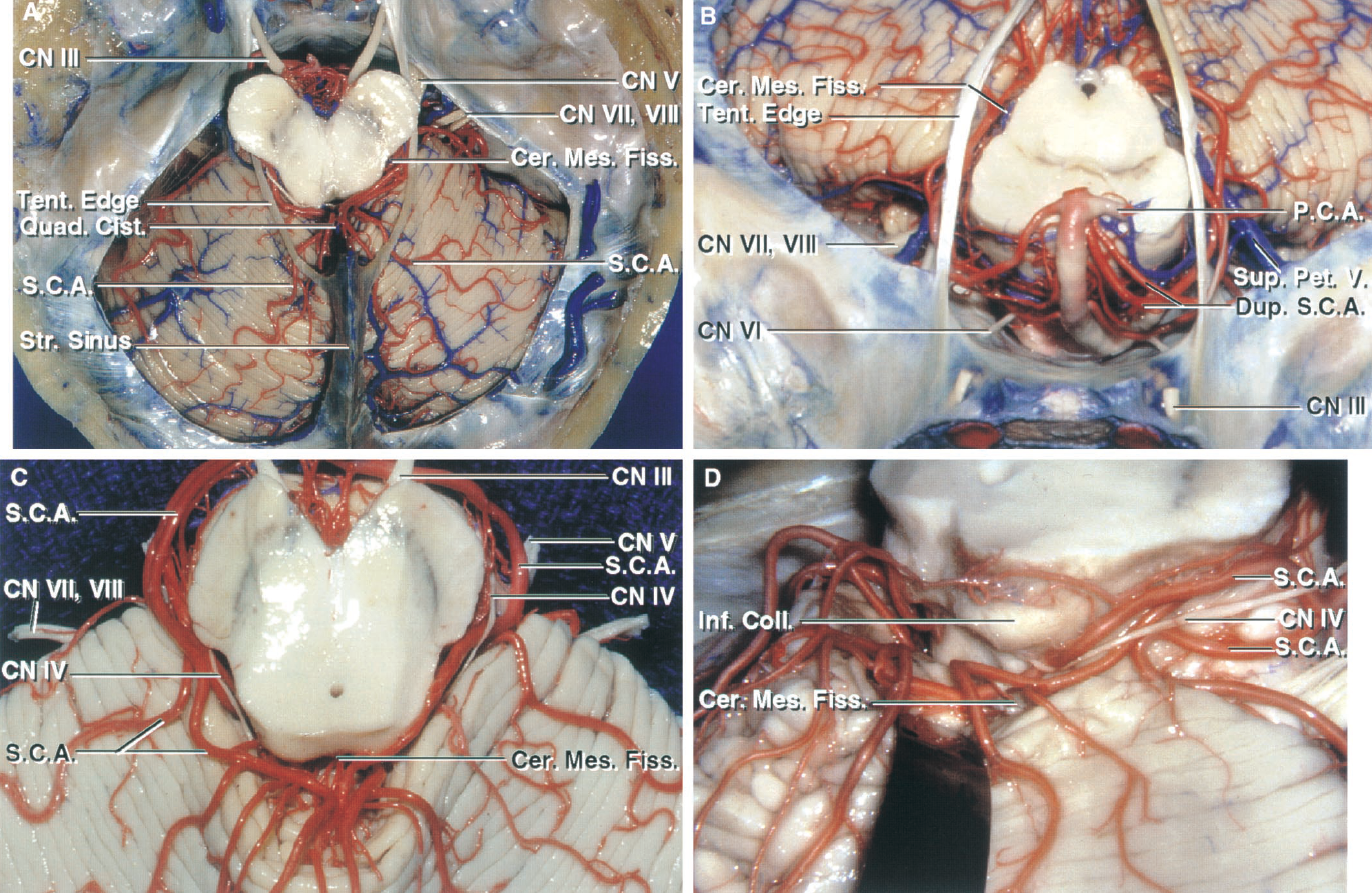 FIGURE 2.6. The SCA, cerebellomesencephalic fissure, and tentorial surface. Superior views. A, the SCAs pass around the midbrain to enter the cerebellomesencephalic fissure and, after a series of hairpin turns in the fissure, loop over the posterior lip of the fissure to reach the tentorial surface. The lower part of the quadrigeminal cistern extends in the cerebellomesencephalic fissure. The tentorial surface slopes downward from the apex just behind the fissure. B, anterosuperior view. The left SCA arises on a duplicate artery. In their initial course, the SCAs loop laterally below the tentorial edge, but further posteriorly, they pass medially under the tentorial edge to enter the cerebellomesencephalic fissure. C, another cerebellum. The SCAs loop into the cerebellomesencephalic fissure, where they undergo a series of hairpin turns before exiting the fissure to supply the tentorial surface. D, the posterior lip of the fissure has been retracted to expose the branches of the SCA within the fissure. Cer. Mes., cerebellomesencephalic; Cist., cistern; CN, cranial nerve; Coll., colliculus; Dup., duplicate; Fiss., fissure; Inf., inferior; P.C.A., posterior cerebral artery; Pet., petrosal; Quad., quadrigeminal; S.C.A., superior cerebellar artery; Str., straight; Sup., superior; Tent., tentorial; V., vein.
