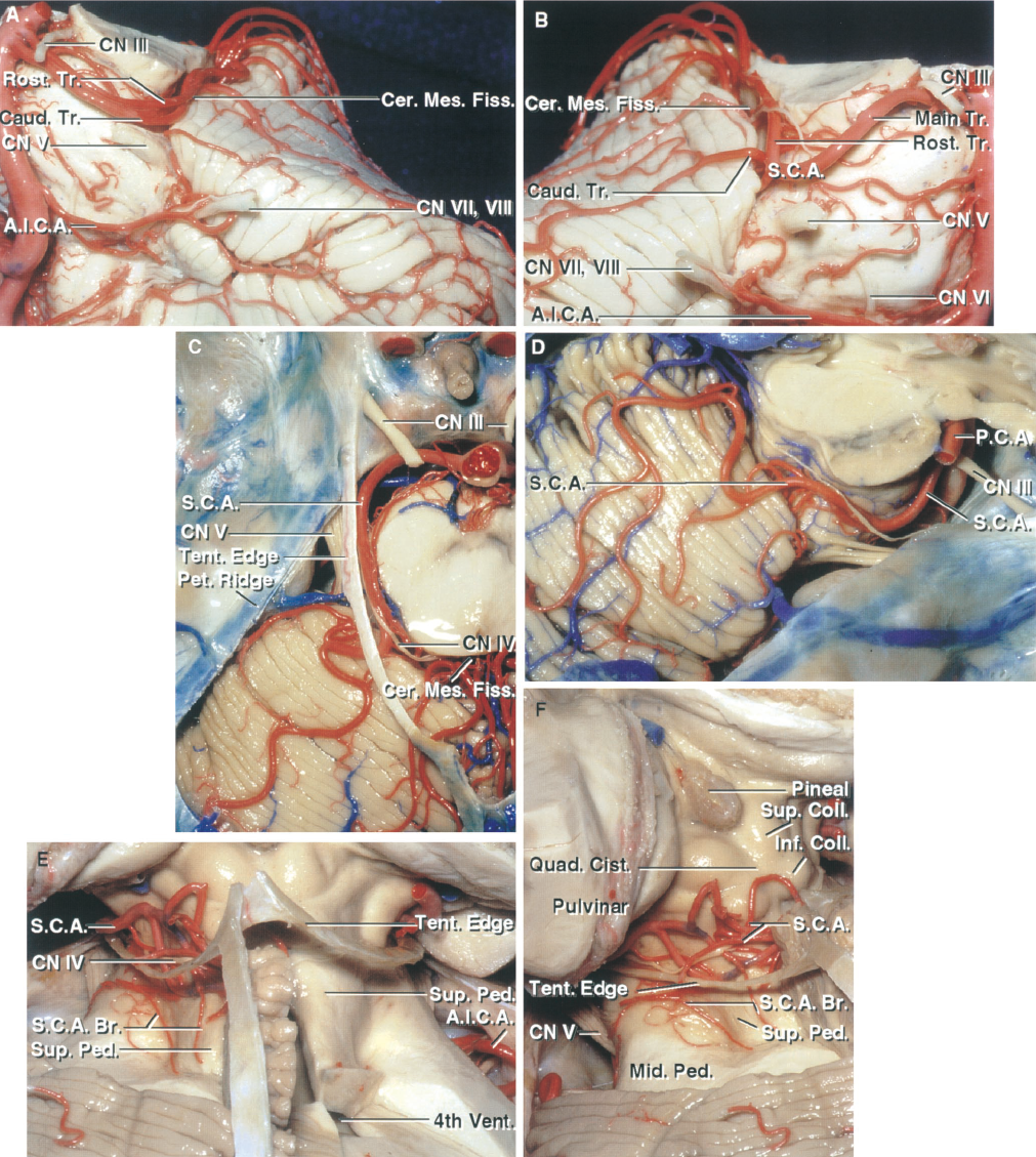 FIGURE 2.8. SCA relationships. A, the left SCA arises as a duplicate artery. The caudal duplicate trunk crosses the rostral surface of the trigeminal nerve before entering the cerebellomesencephalic fissure. B, the right SCA does not divide into rostral and caudal trunks until it reaches the anterior edge of the cerebellomesencephalic fissure. C, near its origin, the SCA courses below the oculomotor nerve and distally, near its entrance into the cerebellomesencephalic fissure, passes under the trochlear nerve. D, another SCA. A large trunk passes directly from the side of the brainstem to the hemispheric surface without entering the fissure, although it does give off some smaller branches to the fissure. E, the posterior lip of the cerebellomesencephalic fissure has been removed and the upper half of the roof of the fourth ventricle opened. The SCA gives rise to perforating branches that pass down the superior cerebellar peduncle to supply the dentate nucleus. F, oblique posterior view of the SCA branches within the cerebellomesencephalic fissure and the quadrigeminal cistern. The SCA supplies the cisternal walls below the sulcus between the superior and inferior colliculi, and the PCA supplies the wall above this level. A.I.C.A., anteroinferior cerebellar artery; Br., branch; Caud., caudal; Cer. Mes., cerebellomesencephalic; Cist., cistern; CN, cranial nerve; Coll., colliculus; Fiss., fissure; Inf., inferior; Mid., middle; P.C.A., posterior cerebral artery; Ped., peduncle; Pet., petrosal; Quad., quadrigeminal; Rost., rostral; S.C.A., superior cerebellar artery; Sup., superior; Tent., tentorial; Tr., trunk; Vent., ventricle.