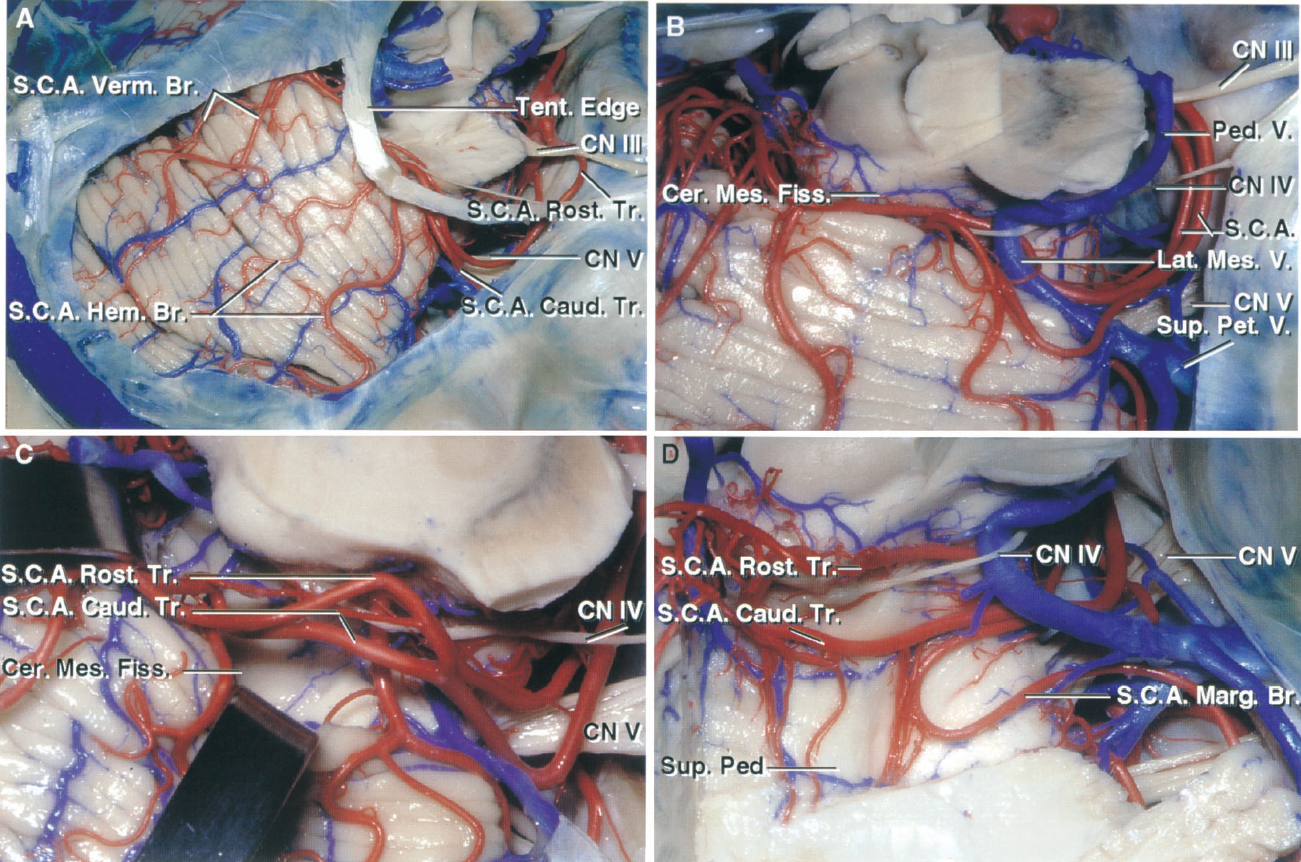FIGURE 2.9. A, the right SCA arises from the basilar artery as a duplicate artery. The rostral duplicate trunk gives rise to vermian branches that supply the vermis and the adjacent part of the hemisphere. The caudal duplicate trunk gives rise to hemispheric branches. B, enlarged view. Care is required in occluding and dividing the superior petrosal veins around the trigeminal nerve, because the branches of the SCA may be intertwined with the tributaries of the veins, as in this example. The peduncular vein, which usually empties into the basal vein, joins the lateral mesencephalic vein, and empties into the superior petrosal sinus. C, the lip of the fissure has been retracted to expose the SCA trunks and branches. D, the posterior lip of the cerebellomesencephalic fissure has been removed. Within the fissure, the SCA branches pass down the superior cerebellar peduncle. Some SCA branches pass above and some below the trochlear nerve. The SCA gives rise to a marginal branch that supplies some of the petrosal surface bordering the tentorial surface. Br., branch; Caud., caudal; Cer. Mes., cerebellomesencephalic; CN, cranial nerve; Fiss., fissure; Hem., hemispheric; Lat., lateral; Marg., marginal; Mes., mesencephalic; Ped., peduncle; Pet., petrosal; Rost., rostral; S.C.A., superior cerebellar artery; Sup., superior; Tent., tentorial; Tr., trunk; V., vein; Verm., vermian.