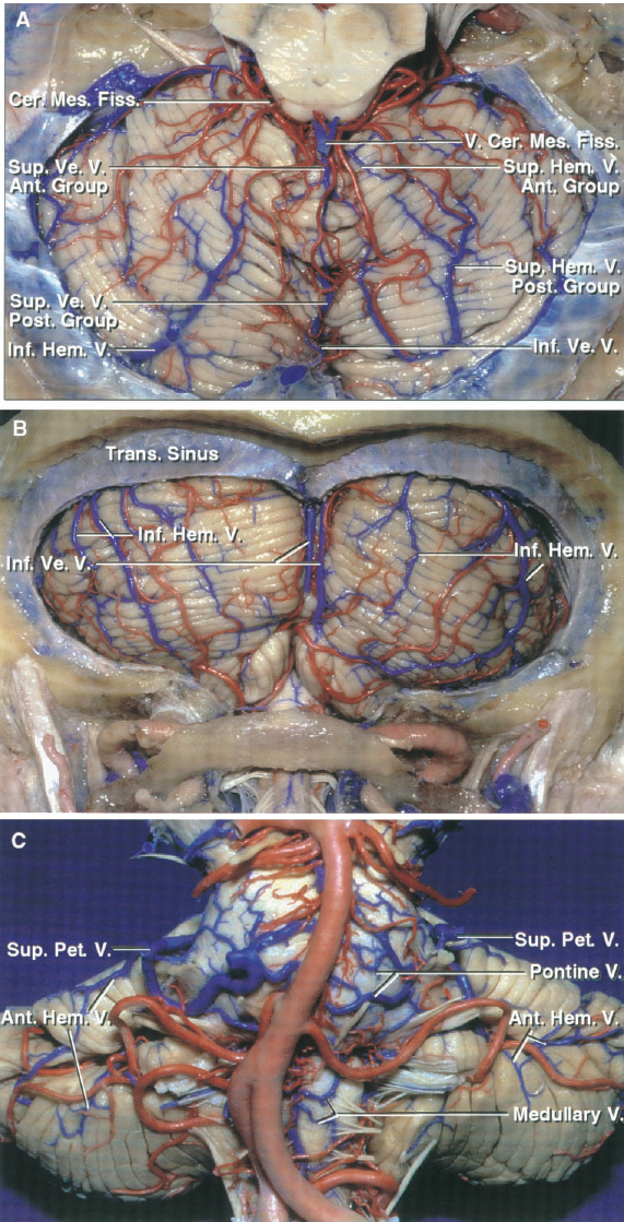 FIGURE 3.1. Drainage patterns of the cerebellar surfaces. A, tentorial surface. The tentorial surface is drained by the superior hemispheric and superior vermian veins, which are divided into an anterior and a posterior group. The anterior group and the veins from the cerebellomesencephalic fissure empty predominantly into the vein of Galen and its tributaries. The posterior group drains the posterior part of the tentorial surface and empties into the tentorial sinuses, which are tributaries of the straight, transverse, or superior petrosal sinus, or the torcula. Some of the inferior hemispheric veins from the suboccipital surface pass forward under the transverse sinus and cross the posterior part of the tentorial surface to empty into the tentorial sinuses. B, suboccipital surface. The suboccipital surface is drained by the inferior hemispheric and inferior vermian veins, which ascend toward the transverse sinus, but then turn forward below the sinus and commonly empty into the tentorial sinuses. Some of the inferior hemispheric veins from the suboccipital surface empty into the inferior vermian veins, which in turn empty into the tentorial sinuses. C, petrosal surface and anterior surface of the brainstem. The anterior hemispheric veins, which drain the petrosal surface, and the veins from the brainstem commonly unite to form the superior petrosal veins that empty into the superior petrosal sinus. Ant., anterior; Cer. Mes., cerebellomesencephalic; Fiss., fissure; Hem., hemispheric; Inf., inferior; Pet., petrosal; Post., posterior; Sup., superior; Trans., transverse; V., vein; Ve., vermian.
