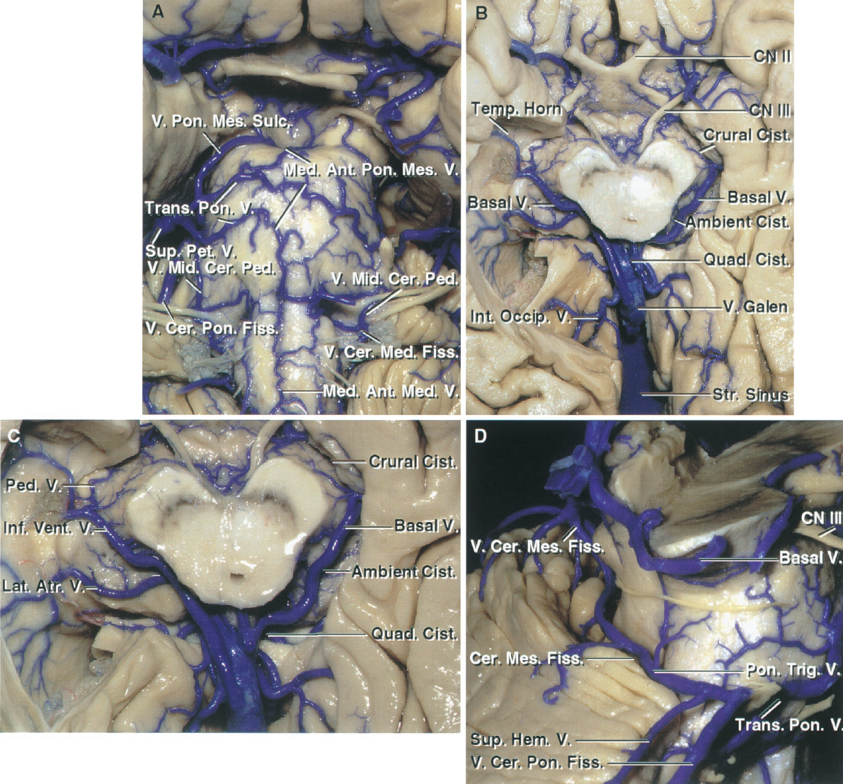 FIGURE 3.10. Upper brainstem. A, the veins on the anterior surface of the pons and medulla and the veins of the cerebellopontine fissure and their tributaries empty into the superior petrosal veins. The median anterior medullary vein and median anterior pontomesencephalic veins course in the midline, but often do not extend along the full length of the pons and medulla. The vein of the pontomesencephalic sulcus and the transverse pontine veins are transversely oriented. The veins of the cerebellomedullary fissure join the veins of the middle cerebellar peduncle, which ascends to join the veins of the cerebellopontine fissure. B, the veins in the crural and ambient cistern join the basal vein, which empties into the vein of Galen in the quadrigeminal cistern. The basal vein also drains the walls of the temporal horn, which has been opened on the right. An internal occipital vein passes from the calcarine sulcus and occipital lobe to the vein of Galen. C, enlarged view of the basal cisterns. The inferior ventricular vein from the temporal horn and the lateral atrial vein join the basal vein, which also drains the walls of the crural and ambient cisterns. The cerebellomesencephalic fissure, an inferior extension of the quadrigeminal cistern, is drained by tributaries of the vein of Galen. D, lateral view of the cerebellomesencephalic fissure. The veins in the medial portion of the cerebellomesencephalic fissure empty into the vein of Galen and those from the lateral part may join the superior petrosal veins. In this case, the vein of the cerebellomesencephalic fissure is small, resulting in most of the fissure's drainage being directed laterally through a pontotrigeminal vein, which passes above the trigeminal nerve to empty into a superior petrosal vein formed by a superior hemispheric and transverse pontine vein and the vein of the cerebellopontine fissure. Ant., anterior; Atr., atrial; Cer., cerebellar; Cer. Med., cerebellomedullary; Cer. Mes., cerebellomesencephalic; Cist., cistern; CN, cranial nerve; Fiss., fissure; Hem., hemispheric; Int., internal; Lat., lateral; Med., median, medullary; Mes., mesencephalic; Mid., middle; Occip., occipital; Ped., peduncle; Pet., petrosal; Pon., pontine, ponto; Quad., quadrigeminal; Str., straight; Sulc., sulcus; Sup., superior; Temp., temporal; Trans., transverse; Trig., trigeminal; V., vein; Vent., ventricle.