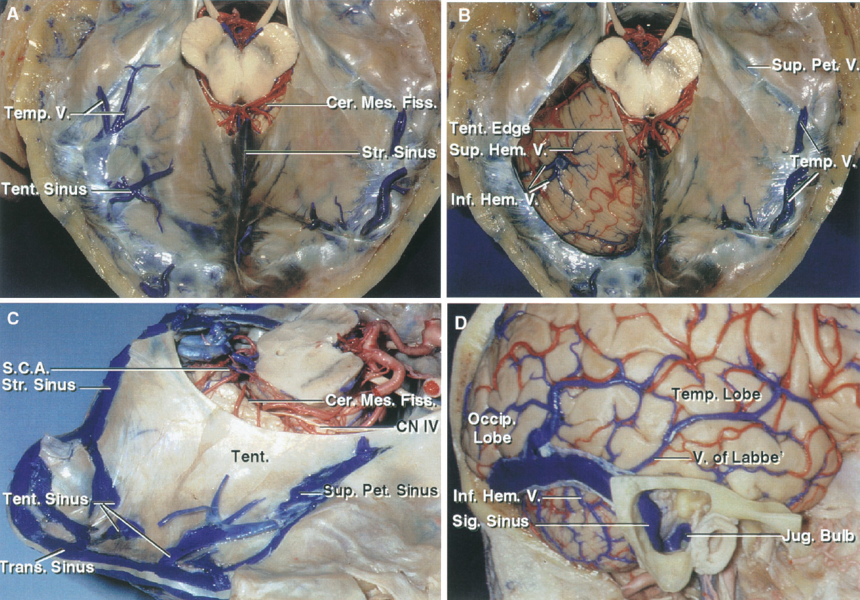 FIGURE 3.2. A–D. Venous drainage of the posterior fossa. A, superior surface of the tentorium. Some of the tentorial sinuses can be seen through the tentorial surface. Veins from both the cerebrum and cerebellum empty into the tentorial sinuses. The veins in the quadrigeminal cistern and the cerebellomesencephalic fissure empty into the vein of Galen and its tributaries. B, the left half of the tentorium has been removed while preserving the tentorial edge. The inferior hemispheric veins from the suboccipital surface cross the posterior part of the tentorial surface to empty into one of the tentorial sinuses with some of the superior hemispheric veins. Two veins from the right posterior temporal lobe empty into the transverse sinus. C, superolateral view of the tentorium. A complex and variable group of venous sinuses course within the tentorium and empty into the straight, transverse, and superior petrosal sinuses. The veins draining the suboccipital surface and posterior part of the tentorial surface empty into the tentorial sinuses. The majority of veins from the upper part of the tentorial surface drain toward the cerebellomesencephalic fissure and empty into tributaries of the vein of Galen. Some veins from the lateral part of the tentorial surface may empty into the superior petrosal sinus. D, lateral cerebral and cerebellar surfaces. The sinuses in the tentorium receive drainage from both the cerebrum and cerebellum. Veins from the lateral and inferior surfaces of the cerebral hemisphere pass toward, but often turn medially above the transverse sinus to join the tentorium sinuses that empty into the transverse sinus. The inferior hemispheric veins from the suboccipital surface ascend toward, but often pass below the transverse sinus to empty into the tentorial sinuses. A mastoidectomy has been completed to expose the sigmoid sinus and jugular bulb. Cer., cerebellar; Cer. Mes., cerebellomesencephalic; Cist., cistern; CN, cranial nerve; Fiss., fissure; Hem., hemispheric; Inf., inferior; Int., internal; Jug., jugular; Occip., occipital; Ped., peduncle; Pet., petrosal; Quad., quadrigeminal; S.C.A., superior cerebellar artery; Sig., sigmoid; Str., straight; Sup., superior; Temp., temporal; Tent., tentorial; Trans., transverse; V., vein.