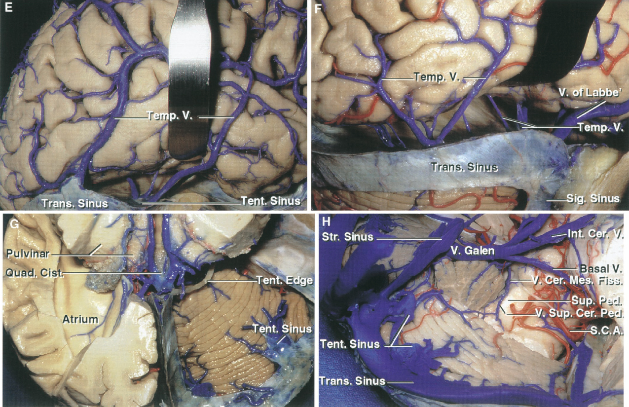 FIGURE 3.2. E–H. Venous drainage of the posterior fossa. E, the temporal lobe has been elevated to show a group of veins that pass from the lower surface of the cerebral hemisphere to the tentorial sinuses. Two large lateral cerebral veins empty into the right transverse sinus, but the more medial veins exposed by eliminating the temporal lobe empty into tentorial sinuses. F, the posterior part of the right temporal lobe has been elevated to show the complex of veins on the inferior surface of the hemisphere that empty into the tentorial sinuses. G, the right half of the tentorium has been opened while preserving a large tentorial sinus, which receives drainage from the cerebrum and cerebellum. The temporal and occipital lobes have been preserved on the left side. H, the posterior lip of the cerebellomesencephalic fissure has been removed. The paired veins of the superior cerebellar peduncle ascend to join and form the vein of the cerebellomesencephalic fissure, which empties into the vein of Galen.