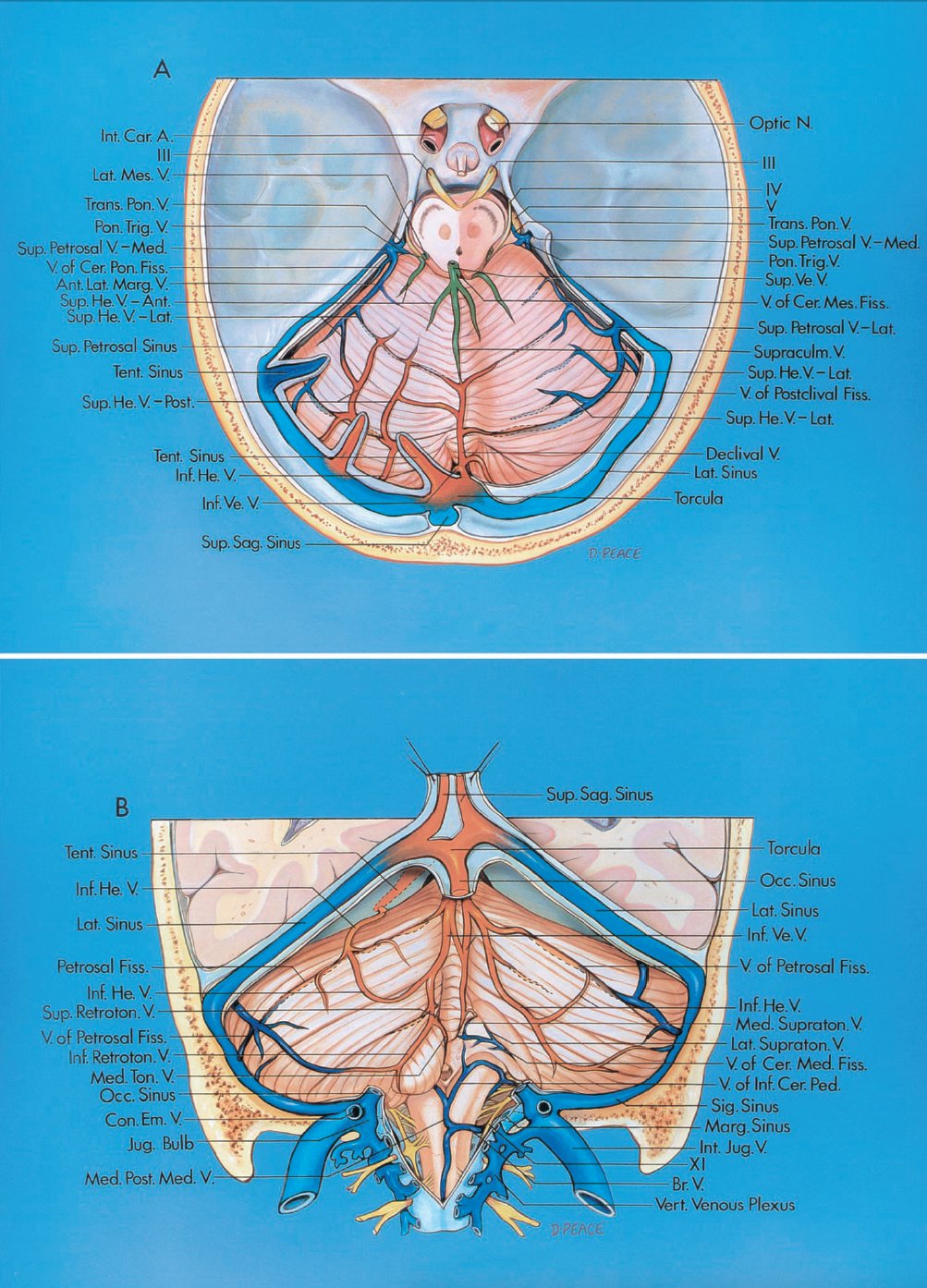 FIGURE 3.3. A and B. Veins of the posterior fossa. The veins in the posterior are divided into three groups: a galenic group (green) that drains into the vein of Galen; a petrosal group (blue) that drains into the petrosal sinuses; and a tentorial group (brown) that drains into the sinuses near the torcula. A, tentorial surface, superior view. The tentorium has been removed except in the area of the tentorial sinuses. B, suboccipital surface, posterior view. The right tonsil and the medial part of the biventral lobule have been removed to expose the structures on the ventral wall of the cerebellomedullary fissure. A., artery; Ant., anterior; Bas., basilar; Br., bridging; Car., carotid; Cav., cavernous; Cer., cerebellar, cerebello, cerebral; Cer. Mes., cerebellomesencephalic; Ch., choroidal; Com., communicating; Con., condylar; Em., emissary; Fiss., fissure; He., hemispheric; Inf., inferior; Int., internal; Jug., jugular; Lat., lateral; Lig., ligament; Marg., marginal; Med., medial, medullary; Mes., mesencephalic; Mid., mid, middle; N., nerve; Occ., occipital; Olf., olfactory; Ped., peduncle; Pon., pontine; Post., posterior; Retroton., retrotonsillar; Sag., sagittal; Sig., sigmoid; Str., straight; Sulc., sulcus; Sup., superior; Supraculm., supraculminate; Supraton., supratonsillar; Tent., tentorial; Ton., tonsillar; Trans., transverse; Trig., trigeminal; V., vein; Ve., vermian; Vel., velum; Vert., vertebral.