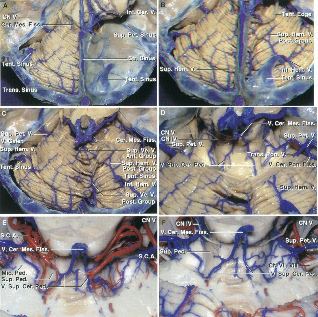 FIGURE 3.4. Tentorial surface and cerebellomesencephalic fissure. A, the left half of the tentorium has been removed while preserving a laterally placed tentorial sinus. A large sinus is seen through the right tentorial surface. B, the right half of the tentorium has been removed to expose a large inferior hemispheric vein from the suboccipital surface and a smaller superior hemispheric vein from the tentorial surface emptying into the large tentorial sinus. The superior hemispheric veins, which drain the tentorial surface, are divided into an anterior group, which empties into the Galenic system, and a posterior group, like the vein shown, which empties into the tentorial sinuses. Smaller veins from both the left tentorial and suboccipital surfaces join the laterally placed tentorial sinus near the junction of the left transverse and superior petrosal sinuses. C, the straight and tentorial sinuses have been removed. The anterior group drains toward the cerebellomesencephalic fissure and the vein of Galen, and the posterior group passes backward to empty into the tentorial sinuses. D, the posterior lip of the cerebellomesencephalic fissure has been removed to expose the veins of the superior cerebellar peduncle, which ascend to unite and form the vein of the cerebellomesencephalic fissure that empties into the vein of Galen. A transverse pontine vein and the vein of the cerebellopontine fissure join to form a superior petrosal vein that empties into the superior petrosal sinus. E–F, cerebellomesencephalic fissure from another hemisphere. E, the posterior lip of the cerebellomesencephalic fissure has been removed to expose the tributaries of the vein of the cerebellomesencephalic fissure and the branches of the SCA. The paired veins of the superior cerebellar peduncle unite to form the vein of the cerebellomesencephalic fissure that empties into the vein of Galen. F, the branches of the SCA within the cerebellomesencephalic fissure have been removed. The paired veins of the superior cerebellar peduncle ascend on the superior cerebellar peduncles and join to form the vein of the cerebellomesencephalic fissure. The veins on the surface of the middle cerebellar peduncle course laterally to join the veins emptying into the superior petrosal sinus. A., artery; Ant., anterior; Cer., cerebral; Cer. Mes., cerebellomesencephalic; CN., cranial nerve; Fiss., fissure; Hem., hemispheric; Inf., inferior; Int., internal; Mid., middle; N., nerve; Ped., peduncle; Post., posterior; Str., straight; Sup., superior; Tent., tentorial; Trans., transverse; V., vein; Ve., vermian.