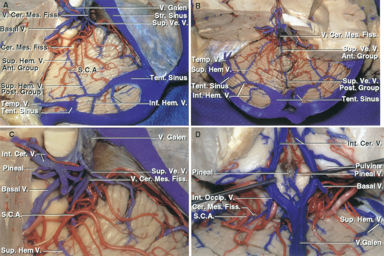 FIGURE 3.5. Tentorial surface and cerebellomesencephalic fissure. A, the left half of the tentorium has been removed while preserving the tentorial sinuses. The anterior group of superior vermian and superior hemispheric veins arise on the upper part of the tentorial surface and ascend to reach the veins exiting the cerebellomesencephalic fissure, which empty into the vein of Galen. The posterior group of superior vermian and superior hemispheric veins arise on the posterior part of the tentorial surface and descend to empty into tentorial sinuses. The inferior hemispheric veins, which arise on the suboccipital surface, also empty into the tentorial sinuses. B, both halves of the tentorium have been removed while preserving the large tentorial sinuses. The superior hemispheric veins from the posterior part of the tentorial surface and the inferior hemispheric veins from the suboccipital surface drain into the paired large tentorial sinus that join the torcula. The veins draining the anterior part of the tentorial surface empty into the tributaries of the vein of Galen. C, lateral view of the cerebellomesencephalic fissure. The largest vein in the fissure is the vein of the cerebellomesencephalic fissure. The internal cerebral veins pass above the pineal to join the vein of Galen. D, the veins draining the walls of the cerebellomesencephalic fissure join the vein of Galen, as do the internal cerebral and basal veins. A pineal vein also joins the Galenic group. Ant., anterior; Cer., cerebral; Cer. Mes., cerebellomesencephalic; Fiss., fissure; Hem., hemispheric; Inf., inferior; Int., internal; Occip., occipital; Post., posterior; S.C.A., superior cerebellar artery; Str., straight; Sup., superior; Temp., temporal; Tent., tentorial; V., vein; Ve., vermian.
