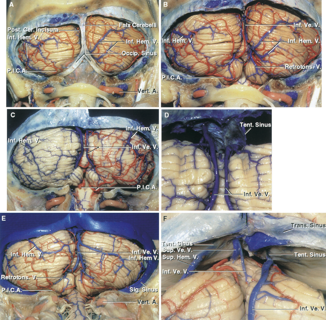FIGURE 3.6. Suboccipital surface. A, the falx cerebelli, which fits into the posterior cerebellar incisura in which the vermis is partially buried, has been preserved. The inferior hemispheric veins drain the hemispheric portion of the suboccipital surface. A large left inferior hemispheric vein ascends toward a tentorial sinus. A large right inferior hemispheric vein descends medially to join an inferior vermian vein, which ascends to empty into the sinuses in the tentorium. The occipital sinus courses within the falx cerebelli and joins the torcula above and the sigmoid sinus below. B, the falx cerebelli has been removed to expose the inferior vermian veins, which ascend and pass below the transverse sinus to empty into the tentorial sinuses. The retrotonsillar veins and other veins around the superior pole of the tonsils ascend to join the inferior vermian veins. C and D, another cerebellum. C, the branches of the PICA supplying the left hemisphere have been removed, but those on the right have been preserved. The inferior vermian and hemispheric veins on both halves of the suboccipital surface ascend and pass below the transverse sinus to empty into the sinuses in the tentorium. D, enlarged view of the inferior vermian veins that ascend to empty into sinuses in the tentorium. E, another cerebellum. A large right inferior hemispheric vein joins an inferior vermian vein that crosses the upper edge of the suboccipital surface and courses for a short distance on the tentorial surface before emptying into a tentorial sinus. F, enlarged view of another cerebellum. The large right inferior vermian vein passes forward to join the sinuses in the tentorium. A superior hemispheric vein from the tentorial surface descends to join a tentorial sinus. In the midline, a superior and inferior vermian join to empty into a tentorial sinus. A., artery; Cer., cerebellar; Hem., hemispheric; Inf., inferior; Occip., occipital; P.I.C.A., posteroinferior cerebellar artery; Post., posterior; Retroton., retrotonsillar; Sig., sigmoid; Sup., superior; Tent., tentorial; Trans., transverse; V., vein; Ve., vermian; Vert., vertebral.