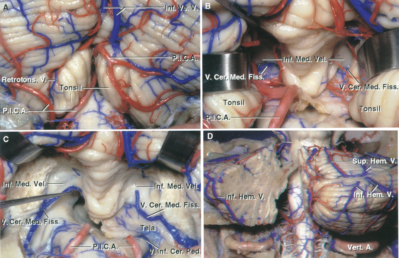 FIGURE 3.7. Suboccipital surface and cerebellomedullary fissure. A, the veins from the region of the tonsil empty into the inferior vermian veins that ascend toward the sinuses in the tentorium. B, gentle retraction of the cerebellar tonsils exposes the veins of the cerebellomedullary fissure crossing the inferior medullary velum. C, the cerebellar tonsils have been removed. The tela on the left side has been removed. The veins of the cerebellomesencephalic fissure cross the inferior medullary velum to join the veins in the cerebellopontine angles, which empty into the superior petrosal veins. The medial end of the veins of the cerebellomedullary fissure anastomose with the veins around the tonsil. D, a portion of the left half of the cerebellum has been removed. The inferior hemispheric veins from the suboccipital surface ascend and cross the junction of the suboccipital and tentorial surfaces to course on the posterior part of the tentorial surface, where they often form common stems with the superior hemispheric veins from the posterior part of the tentorial surface before emptying into the tentorial sinuses. A., artery; Cer., cerebellar; Cer. Med., cerebellomedullary; Fiss., fissure; Hem., hemispheric; Inf., inferior; Med., medullary; Ped., peduncle; P.I.C.A., posteroinferior cerebellar artery; Retrotons., retrotonsillar; Sup., superior; V., vein; Ve., vermian; Vel., velum; Vert., vertebral.
