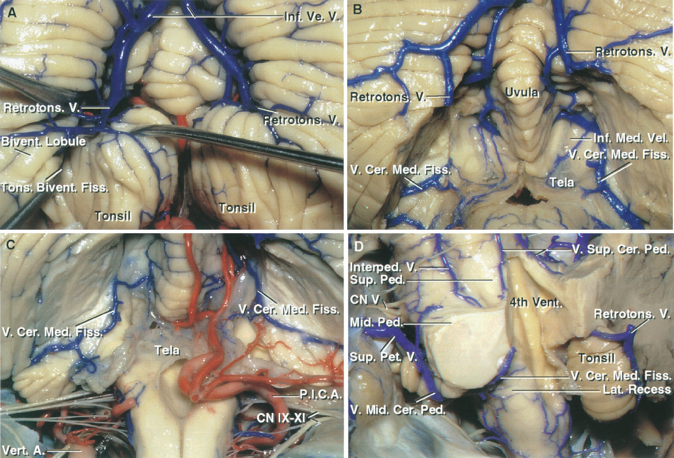 FIGURE 3.8. Suboccipital surface and the cerebellomedullary fissure. A, the retrotonsillar veins pass upward in the fissure between the tonsil and biventral lobule and empty into the inferior vermian veins. B, the tonsils have been removed to expose the veins of the cerebellomedullary fissure, which pass laterally on the inferior medullary velum and across the lateral recesses to join the veins in the cerebellopontine angles. The medial end of the veins of the cerebellomedullary fissure anastomose with the veins around the tonsil. C, another specimen. The tonsils and part of the biventral lobules have been removed to expose the paired veins of the cerebellomedullary fissure, which cross the inferior medullary velum to empty into the veins in the cerebellopontine angles. D, the cerebellar hemispheres, except for the right tonsil, have been removed. The right retrotonsillar vein courses along the posterior surface of the tonsil and empties into an inferior vermian vein. The left vein of the cerebellomedullary fissure passes through the lateral recess to join the vein of the middle cerebellar peduncle, which ascends to empty into a superior petrosal vein. The paired veins of the superior cerebellar peduncle ascend on the peduncle and join to form the vein of the cerebellomesencephalic fissure. An interpeduncular vein courses between the superior and middle cerebellar peduncles. A., artery; Bivent., biventral; Cer., cerebellar; Cer. Med., cerebellomedullary; CN, cranial nerve; Fiss., fissure; Inf., inferior; Interped., interpeduncular; Lat., lateral; Med., medullary; Mid., middle; Ped., peduncle; Pet., petrosal; P.I.C.A., posteroinferior cerebellar artery; Retrotons., retrotonsillar; Sup., superior; Tons., tonsillar; V., vein; Ve., vermian; Vent., ventricle; Vert., vertebral.