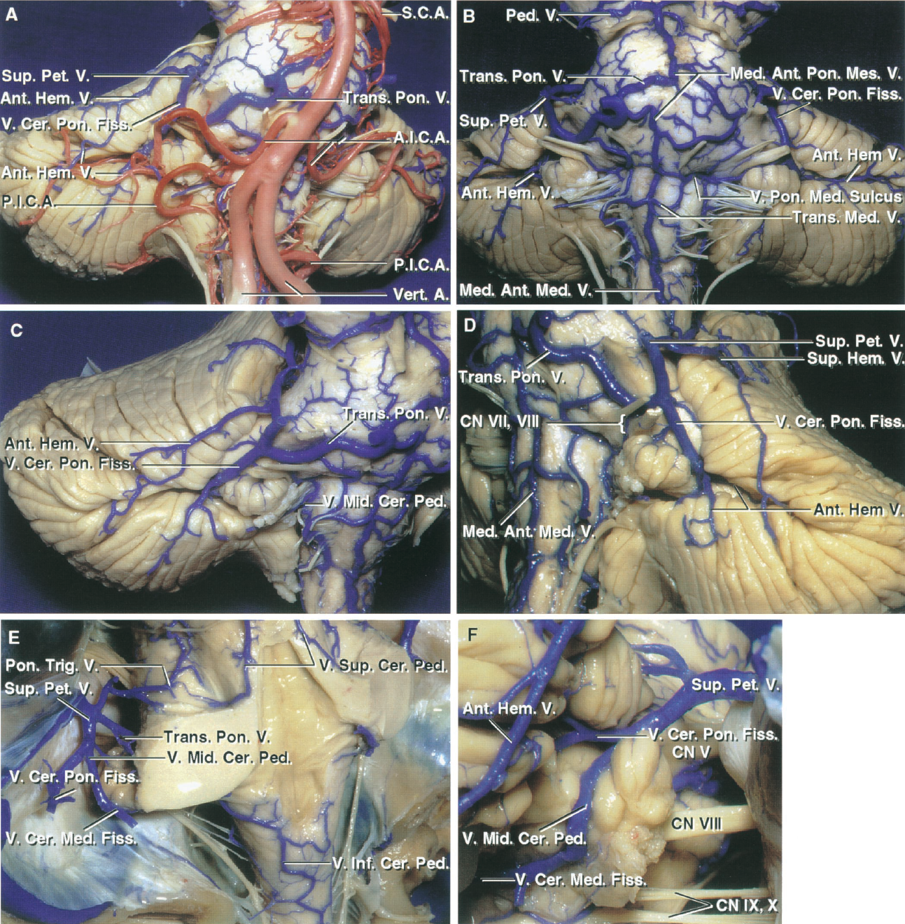 FIGURE 3.9. Brainstem and petrosal surface. A, the vertebral and basilar arteries and their branches course superficial to the veins. The veins on the anterior surface of the pons and medulla and the petrosal surface drain predominantly into the superior petrosal veins, which empty into the superior petrosal sinuses. B, the arteries have been removed. The median anterior pontomesencephalic and median anterior medullary veins ascend on the front of the brainstem. The transverse pontine and transverse medullary veins run transversely across the pons and medulla surfaces. The anterior hemispheric veins drain the petrosal surface and commonly empty into the vein of the cerebellopontine fissure, which ascends to join the superior petrosal veins. The vein of the pontomedullary sulcus passes across the pontomedullary junction. C, enlarged view of the right petrosal surface. The anterior hemispheric veins drain the petrosal surface and pass forward to empty into the vein of the cerebellopontine fissure or a superior petrosal vein. The vein of the cerebellopontine fissure arises at the lateral apex of the cerebellopontine fissure and crosses the middle cerebellar peduncle, where it is joined by a large transverse pontine vein. D, enlarged view of the left petrosal surface. The vein of the cerebellopontine fissure arises from the union of the anterior hemispheric veins at the apex of the cerebellopontine fissure and ascends to be joined by a superior hemispheric vein from the lateral part of the tentorial surface before emptying into the superior petrosal sinus. E, the cerebellum has been removed to expose the veins of the superior, inferior, and middle cerebellar peduncles. The vein of the superior cerebellar peduncle ascends to join the vein of the cerebellomesencephalic fissure. The vein of the inferior cerebellar peduncle crosses the peduncle at the inferolateral margin of the fourth ventricle and passes around the lateral recess to join the veins in the cerebellopontine angle. The veins of the cerebellopontine fissure and middle cerebellar peduncle and a transverse pontine vein join to form a superior petrosal vein. The vein of the cerebellomedullary fissure empties into the vein of the middle cerebellar peduncle. F, posterior view of the right cerebellopontine angle. The vein of the cerebellomedullary fissure passes laterally across the lateral recess and empties into the vein of the middle cerebellar peduncle. The latter vein and the vein of the cerebellopontine fissure join to form a large superior petrosal vein. A large anterior hemispheric vein ascends along the petrosal surface. A., artery; A.I.C.A., anteroinferior cerebellar artery; Ant., anterior; Cer., cerebellar, cerebral; Cer. Med., cerebellomedullary; Cer. Pon., cerebellopontine; CN, cranial nerve; Fiss., fissure; Hem., hemispheric; Inf., inferior; Med., median, medullary; Mid., middle; Ped., peduncle; Pet., petrosal; P.I.C.A., posteroinferior cerebellar artery; Pon., pontine; Pon. Med., pontomedullary; Pon. Mes., pontomesencephalic; Pon. Trig., pontotrigeminal; S.C.A., superior cerebellar artery; Sup., superior; Trans., transverse; Trig., trigeminal; V., vein; Vert., vertebral.