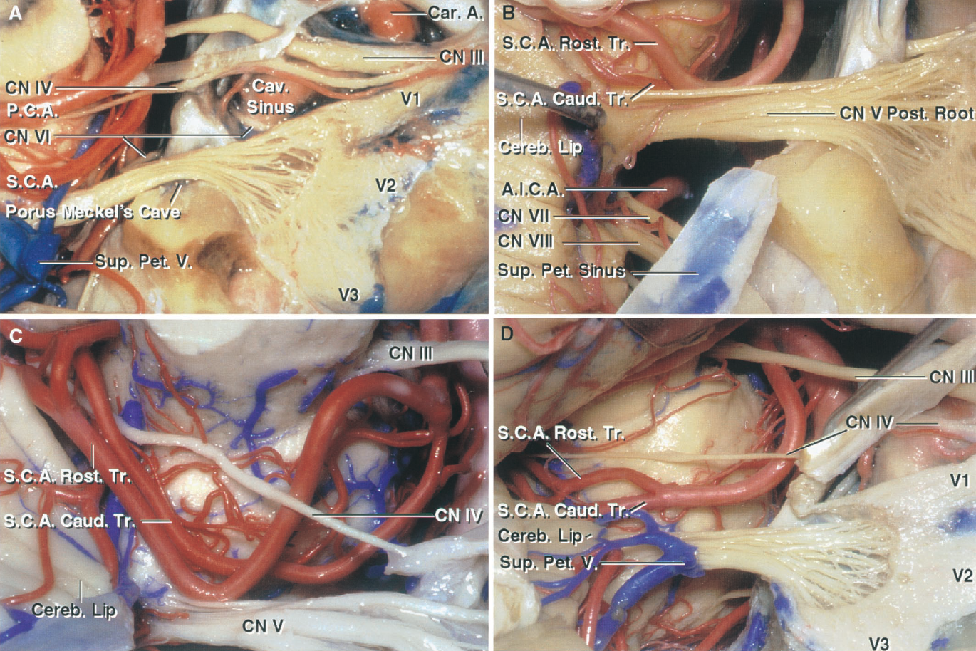 FIGURE 4.10. Trigeminal nerve and SCA relationships. A, the trigeminal posterior root, ganglion, and three divisions have been exposed by removing the dura from the lateral wall of Meckel's cave and the cavernous sinus. The posterior root enters the midpons below the SCA and is intertwined with the branches of the superior petrosal vein. B, the SCA loops downward and, at the junction of the rostral and caudal trunks, contacts the posterior trigeminal root at the pontine junction. The cerebellar lip projects forward and may block access to the junction of the trigeminal nerve and pons in the retrosigmoid approach. C, SCA with an early bifurcation. The rostral trunk loops downward and indents the upper surface of the trigeminal nerve. D, another SCA passes around the pons and bifurcates into its rostral and caudal trunks above the trigeminal root entry zone. A., artery; A.I.C.A., anteroinferior cerebellar artery; Car., carotid; Caud., caudal; Cav., cavernous; Cereb., cerebellar; CN, cranial nerve; Pet., petrosal; Post., posterior; Rost., rostral; S.C.A., superior cerebellar artery; Sup., superior; Tr., trunk; V., vein.