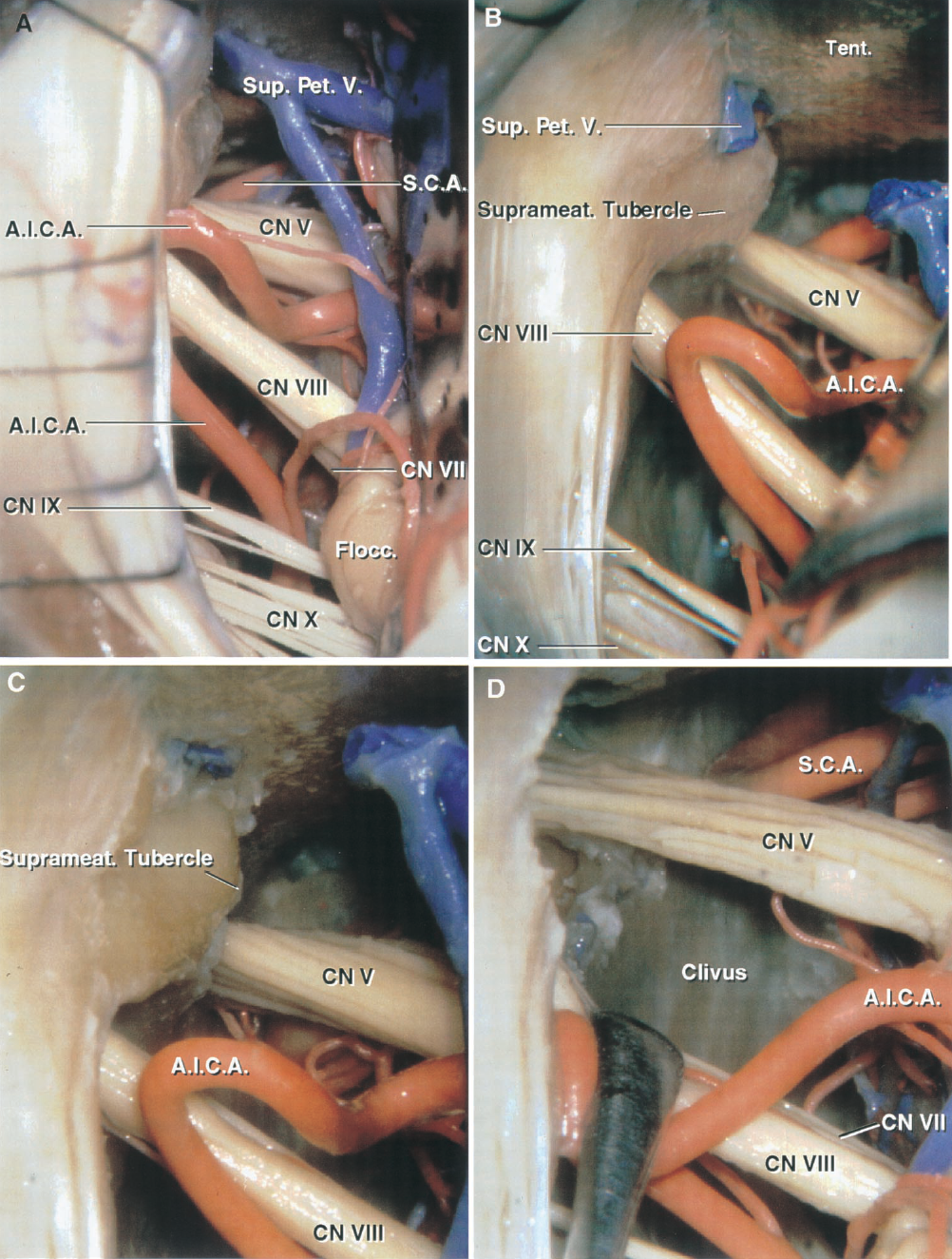 FIGURE 4.15. Suprameatal variant of the retrosigmoid approach. A, the cerebellum has been elevated to expose the nerves in the cerebellopontine angle. A large petrosal vein blocks access to the suprameatal area. B, the superior petrosal vein has been divided to expose the suprameatal tubercle located above the porus of the internal acoustic meatus and lateral to the trigeminal nerve. C, the dura over the suprameatal tubercle has been removed in preparation for drilling.D, removing thesuprameatal bone, including the tubercle, extends the exposure along the posterior trigeminal root by approximately 1 cm and increases access to the front of the brainstem and clivus. A.I.C.A., anteroinferior cerebellar artery; CN, cranial nerve; Flocc., flocculus; Pet., petrosal; S.C.A., superior cerebellar artery; Sup., superior; Suprameat., suprameatal; V., vein.