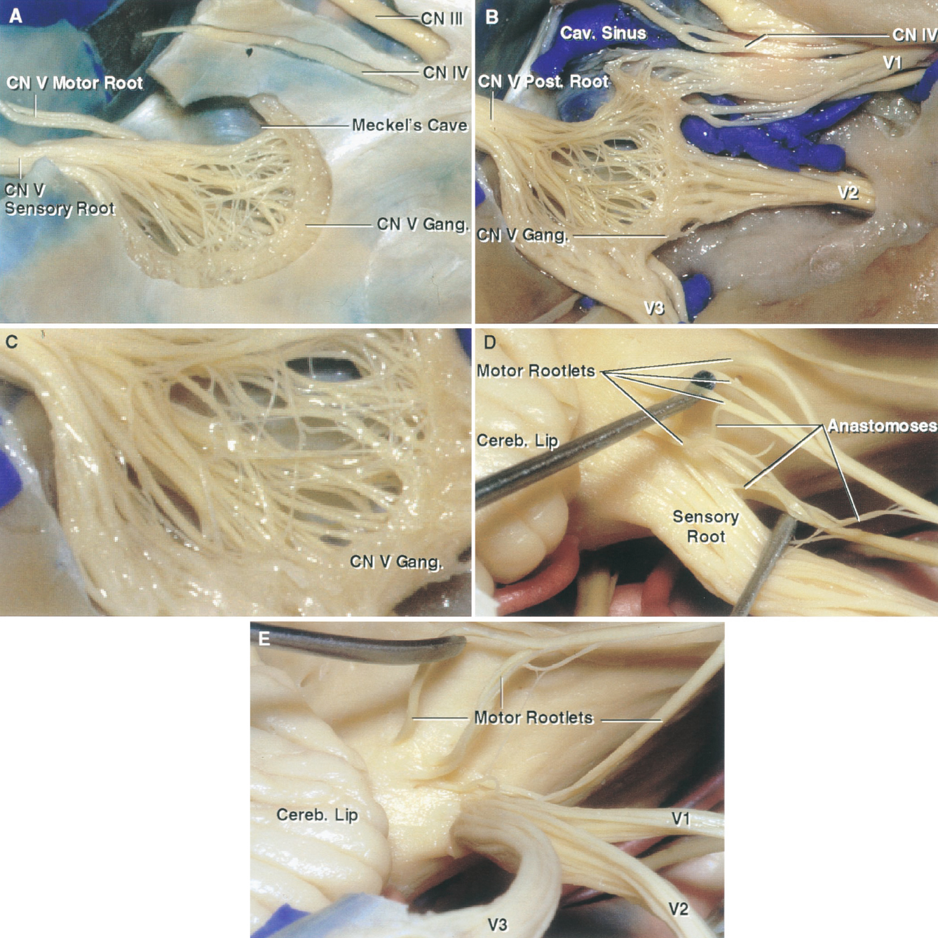 FIGURE 4.2. Lateral views, right trigeminal nerve. A, Meckel's cave, the cistern, which extends forward from the posterior fossa along the posterior trigeminal root to the level of the mid portion of the ganglion, has been exposed by removing the lateral dural wall of the cave. The motor root arises rostral to the sensory root and passes through Meckel's cave on the medial side of the posterior sensory root and ganglion. B, the dura has been removed to expose the posterior root and ganglion and the three trigeminal divisions. There are diffuse anastomoses between the rootlets posterior to the ganglion. C, enlarged view of the diffuse anastomosis in the region of Meckel's cave. D, four motor rootlets, which arise around the rostral margin of the sensory root, have been elevated to expose the anastomoses between the motor and sensory roots. The cerebellar lip projects forward and may hide the junction of the sensory root with the pons in the retrosigmoid approach. E, a cleavage plane has been started anteriorly and extended backward to the level of the posterior root. The first-division fibers are rostromedial within the posterior root and the third-division fibers caudolateral with the second division being in an intermediate location. Cav., cavernous; Cereb., cerebellar; CN, cranial nerve; Gang., ganglion; Post., posterior; V., vein.