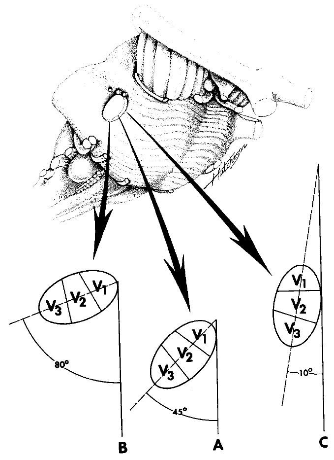FIGURE 4.4. Variability of the longest axis of the elliptical cross section of the trigeminal nerve at the pons (broken line) to the longitudinal axis of the body (solid line). The long axis of most nerves makes a 40- to 50-degree angle with the longitudinal axis of the body (A); however, this can vary from 10 degrees (C) to 80 degrees (B). In B, the third division is almost directly lateral to the first division, and in C, it is almost directly caudal. (From, Gudmundsson K, Rhoton AL Jr, Rushton JG: Detailed anatomy of the intracranial portion of the trigeminal nerve. J Neurosurg 35:592–600, 1971 [12].)