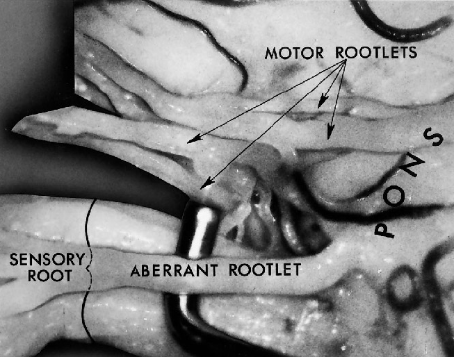 FIGURE 4.5. Lateral view of the left trigeminal nerve. A nerve hook is between the large aberrant sensory rootlet and the main sensory root. An aberrant rootlet arises from the pons directly lateral to the sensory root and joins the sensory root about 1 cm from the brainstem. Four motor rootlets are seen above the sensory root. (From, Gudmundsson K, Rhoton AL Jr, Rushton JG: Detailed anatomy of the intracranial portion of the trigeminal nerve. J Neurosurg 35:592–600, 1971 [12].)