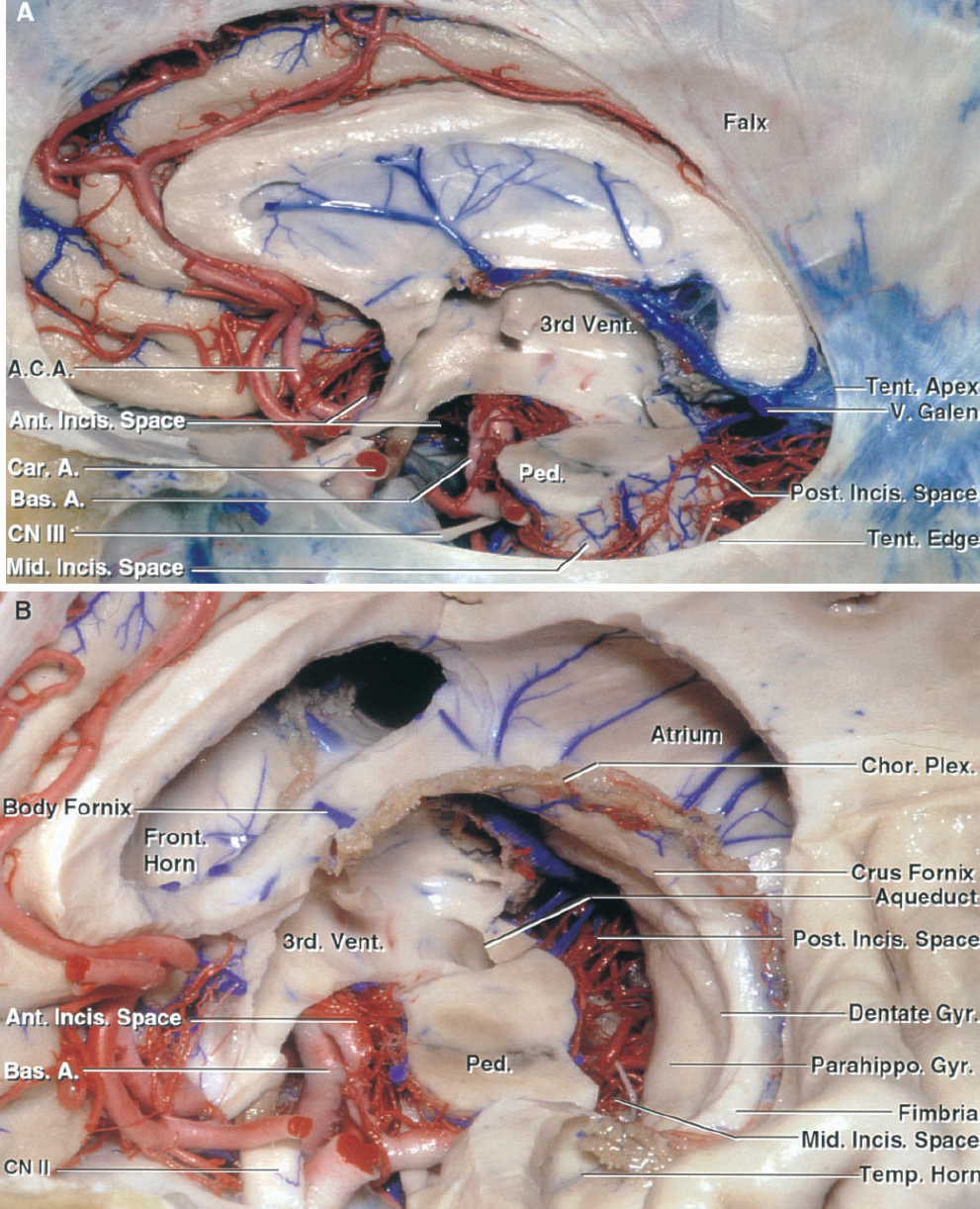 FIGURE 5.1. Tentorial incisura. A, the left cerebral hemisphere has been removed. The tentorial incisura is located between the tentorial edges and is the only site of communication behind the supra and infratentorial spaces. The tentorial apex is located at the junction of the vein of Galen and the straight sinus. The tentorial edges slope downward from the apex. The free edge passes along the side of the brainstem and anteriorly blends into the dura covering the petrous apex and the anterior and posterior clinoid processes. The incisura, in relation to the midbrain, is divided into anterior, middle, and posterior spaces. The anterior incisural space extends above the optic chiasm to the lamina terminalis and below the chiasm and third ventricular floor to the interpeduncular fossa. The middle incisural space is located between the midbrain and tentorial edge, opens upward into the ambient and crural cisterns, and extends inferiorly into the anterior part of the cerebellomesencephalic fissure. The posterior incisural space, located between the posterior midbrain and the tentorial apex, encompasses the quadrigeminal cistern, which extends into the cerebellomesencephalic fissure and along the outer surface of the upper part of the fourth ventricular roof. The anterior incisural space, located below the frontal horn, contains the basilar bifurcation. The PCA and SCA arise in the anterior and pass around the brainstem to reach the middle and posterior incisural spaces. The branches of the PCA and SCA pass through the lateral part of the posterior incisural space, and the large venous structures converging on the vein of Galen course in the medial part of the posterior incisural space. B, part of the left central hemisphere and all of the left thalamus have been removed, while preserving the fornix and choroid plexus. The frontal horn and anterior part of the third ventricle is located above the anterior incisural space. The middle incisural space is located medial to the temporal horn, between the temporal lobe and midbrain. The posterior incisural space is located between the tentorial apex and posterior midbrain surface. A., artery; A.C.A., anterior cerebral artery; Ant., anterior; Bas., basilar; Car., carotid; Chor., choroid; CN, cranial nerve; Front., frontal; Gyr., gyrus; Incis., incisural; Mid., middle; Parahippo., parahippocampal; Ped., peduncle; Plex., plexus; Post., posterior; Temp., temporal; Tent., tentorial; V., vein; Vent., ventricle.