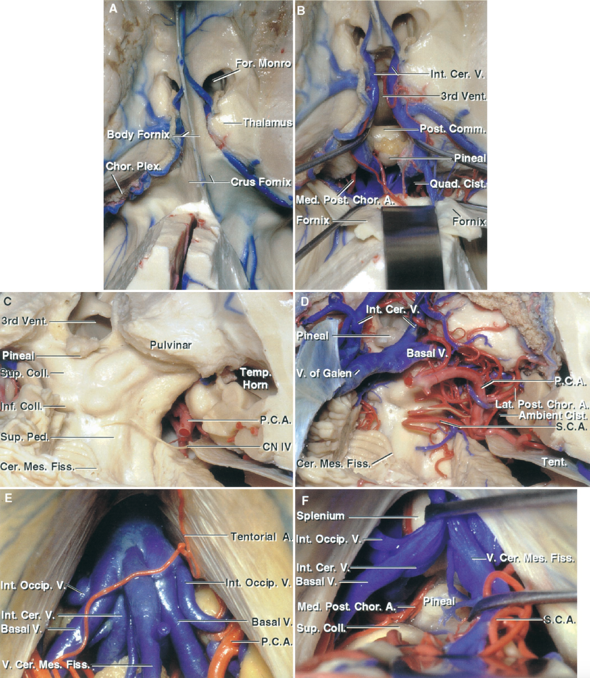 FIGURE 5.10. A–F. Comparison of the midline and paramedian infratentorial supracerebellar and the occipital transtentorial approaches to the quadrigeminal cistern and the posterior third ventricle. A–D, views of the third ventricle and quadrigeminal cistern. A, third ventricle from above. The body of the fornix separates the body of the lateral ventricle from the roof of the third ventricle. The body of the fornix blends posteriorly into the crus of the fornix, which is situated above the posterior part of the third ventricle. The choroidal fissure, the site of attachment of the choroid plexus, is situated between the fornix and thalamus. B, the fornix was divided at the level of the columns, just behind the foramen of Monro, and reflected posteriorly to expose the posterior commissure, pineal, and adjacent part of the quadrigeminal cistern. C, the quadrigeminal cistern is located behind the pineal and the colliculi and between the pulvinars. It extends into the cerebellomesencephalic fissure. The trochlear nerves arise below the inferior colliculi. D, view similar to C, except that the vessels have been preserved. The internal cerebral and basal veins join the vein of Galen behind the pineal. The PCA and SCA exit the ambient cistern to enter the lateral part of the quadrigeminal cistern. Both the infratentorial supracerebellar and occipital transtentorial approaches are directed to this area. E and F, midline infratentorial supracerebellar approach. E, the venous complex emptying into the vein of Galen blocks access to the pineal region. This complex includes the internal occipital, basal and internal cerebral veins, and the vein of the cerebellomesencephalic fissure. A tentorial branch of the SCA crosses the exposure. F, the vein of Galen has been retracted to expose the splenium. The vein of the cerebellomesencephalic fissure has been retracted to expose the pineal. A., artery; Bridg., bridging; Cer., cerebral; Cer. Mes., cerebellomesencephalic; Chor., choroidal; Cist., cistern; CN, cranial nerve; Coll., colliculus; Comm., communicating; Fiss., fissure; For., foramen; Inf., inferior; Int., internal; Lat., lateral; Med., medial; Occip., occipital; P.C.A., posterior cerebral artery; Ped., peduncle; Plex., plexus; Post., posterior; Quad., quadrigeminal; Sag., sagittal; S.C.A., superior cerebellar artery; Str., straight; Sup., superior; Temp., temporal; Tent., tentorial; Trans., transverse; V., vein; Ve., vermian; Vent., ventricle.