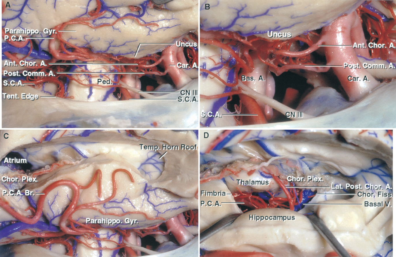 FIGURE 5.7. A–D. Anterior and middle incisural space. A, the right temporal lobe has been elevated. The middle incisural space, located between the lateral surface of the midbrain and the tentorial edge, opens upward into the ambient cistern where the PCA and basal vein course. The internal carotid artery is exposed in front of the midbrain in the anterior incisural space. B, enlarged view of the junction of the anterior and middle incisural space. The internal carotid artery, optic nerves, and basilar bifurcation are located in the anterior incisural space. The oculomotor nerve passes forward between the PCA and SCA. C, the inferior temporal and fusiform gyri have been removed to expose the lateral edge of the parahippocampal gyrus above the middle incisural space. The opening into the temporal horn exposes the choroid plexus attached along the choroidal fissure. The veins draining the roof of the temporal horn empty into the basal vein. D, the choroidal fissure has been opened by detaching the choroid plexus from the fimbria of the fornix. Opening the fissure exposes the upper part of the ambient cistern and the branches of the PCA and basal vein. A., artery; Ant., anterior; Bas., basilar; Br., branch; Car., carotid; Chor., choroid, choroidal; Cist., cistern; CN, cranial nerve; Comm., communicating; Coll., colliculus; Fiss., fissure; Gen., geniculate; Gyr., gyrus; Inf., inferior; Lat., lateral; Med., medial; Mes., mesencephalic; Parahippo., parahippocampal; P.C.A., posterior cerebral artery; Ped., peduncle; Plex., plexus; Post., posterior; S.C.A., superior cerebellar artery; Sup., superior; Temp., temporal; Tent., tentorial; V., vein; Vent., ventricular.
