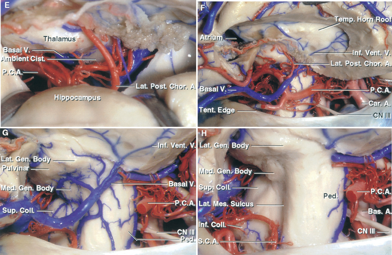 FIGURE 5.7. E–H. E, anterior and middle incisural space, enlarged view. The opening through the choroidal fissure exposes the basal vein and branches of the PCA in the upper part of the ambient cistern. The PCA gives off numerous branches to the choroid plexus, including a large lateral posterior choroidal artery. F, the hippocampus and the medial part of the temporal lobe, including the parahippocampal gyrus, have been removed to expose the upper part of the middle incisural space. The PCA and basal vein course through the middle incisural space on the medial side of the parahippocampal gyrus, which has been removed. The choroid plexus remains attached along the choroidal fissure located between the fimbria and the lower surface of the thalamus. The inferior ventricular veins drain the roof of the temporal horn and empty into the basal vein. G, the branches of the PCA have been removed to expose the basal vein, which originates below the anterior perforated substance and courses posteriorly through the middle incisural space to gain access to the posterior incisural space and the quadrigeminal cistern. The pulvinar and lower surface of the thalamus, including the geniculate bodies, are in the upper margin of the exposure. H, the basal vein has been removed. This exposes the lateral aspect of the cerebral peduncle and the tegmental part of the midbrain, which are separated by the lateral mesencephalic sulcus. The medial and lateral geniculate bodies protrude downward from the lower surface of the thalamus.
