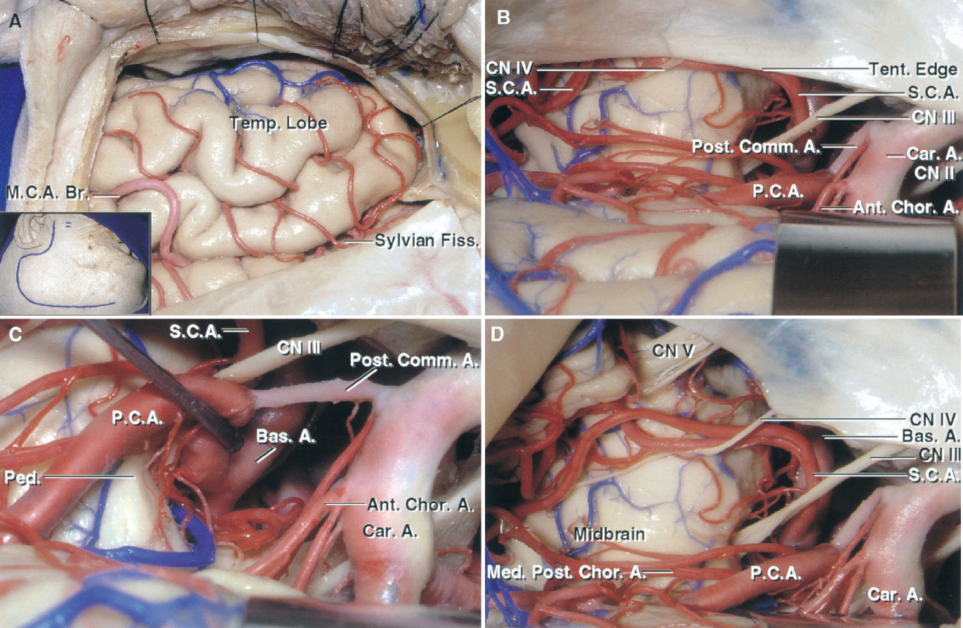 FIGURE 5.8. Anterior and middle subtemporal exposure of the anterior and adjacent part of the middle incisural space. A, the craniotomy flap and dural opening exposes the temporal lobe and the floor of the middle cranial fossa. The insert shows the site of the scalp incision. B, the temporal lobe has been elevated to expose the PCA and SCA in the anterior and middle incisural space. The PCA passes above and the SCA below the oculomotor nerve. The SCA branches course with the trochlear nerve around the side of the brainstem. C, the PCA has been depressed to expose the basilar artery. The anterior choroidal artery arises in the anterior incisural space and passes between the cerebral peduncle and uncus to enter the crural cistern in the middle incisural space. D, the tentorium has been divided behind the petrous ridge to expose the SCA and the trigeminal and trochlear nerves in the region of the middle incisural space. The SCA sends branches above the trigeminal nerve and into the anterior part of the cerebellomesencephalic fissure. The medial posterior choroidal artery also passes around the lateral side of the brainstem. A., artery; Ant., anterior; Bas., basilar; Br., branch; Car., carotid; Chor., choroidal, CN, cranial nerve; Comm., communicating; Fiss., fissure; M.C.A., middle cerebral artery; Med., medial; P.C.A., posterior cerebral artery; Ped., peduncle; Post., posterior; S.C.A., superior cerebellar artery; Temp., temporal; Tent., tentorial.