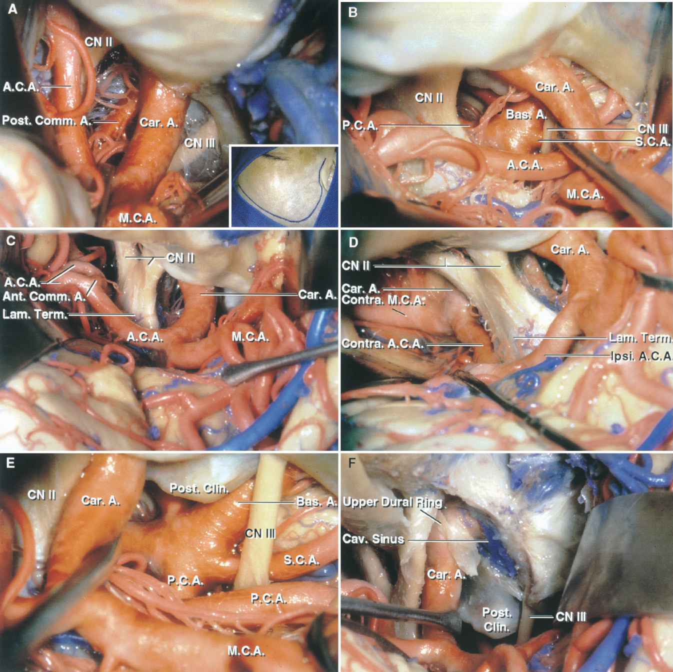 FIGURE 5.9. A–F. Exposure of the anterior incisural space through a frontotemporal craniotomy. A, the insert shows the site of the craniotomy. The frontal and temporal lobes have been retracted to expose the optic and oculomotor nerves and the anterior and middle cerebral and posterior communicating arteries. B, the opticocarotid triangle, located between the optic nerve and the carotid and anterior cerebral arteries, has been opened with gentle retraction to expose the basilar apex and the ipsilateral oculomotor nerve passing forward between the PCA and SCA. C, the exposure has been directed medially above the optic chiasm to expose the region of the anterior communicating artery. D, the frontal lobe has been elevated to expose the contralateral carotid and anterior and middle cerebral arteries. E, the carotid artery has been elevated to expose the basilar artery apex through the interval between the carotid artery and oculomotor nerve. The posterior clinoid process blocks access to the basilar artery. F, the anterior clinoid process and the roof of the cavernous sinus have been removed to provide access to the posterior clinoid process. The upper dural ring is located at the level of the upper margin of the anterior clinoid process. A., artery; A.C.A., anterior cerebral artery; Ant., anterior; Bas., basilar; Car., carotid; Cav., cavernous; Clin., clinoid; CN, cranial nerve; Comm., communicating; Contra., contralateral; Ipsi., ipsilateral; Lam., lamina; M.C.A., middle cerebral artery; P.C.A., posterior cerebral artery; Post., posterior; S.C.A., superior cerebellar artery; Term., terminalis; V1., first ophthalmic branch, trigeminal nerve.