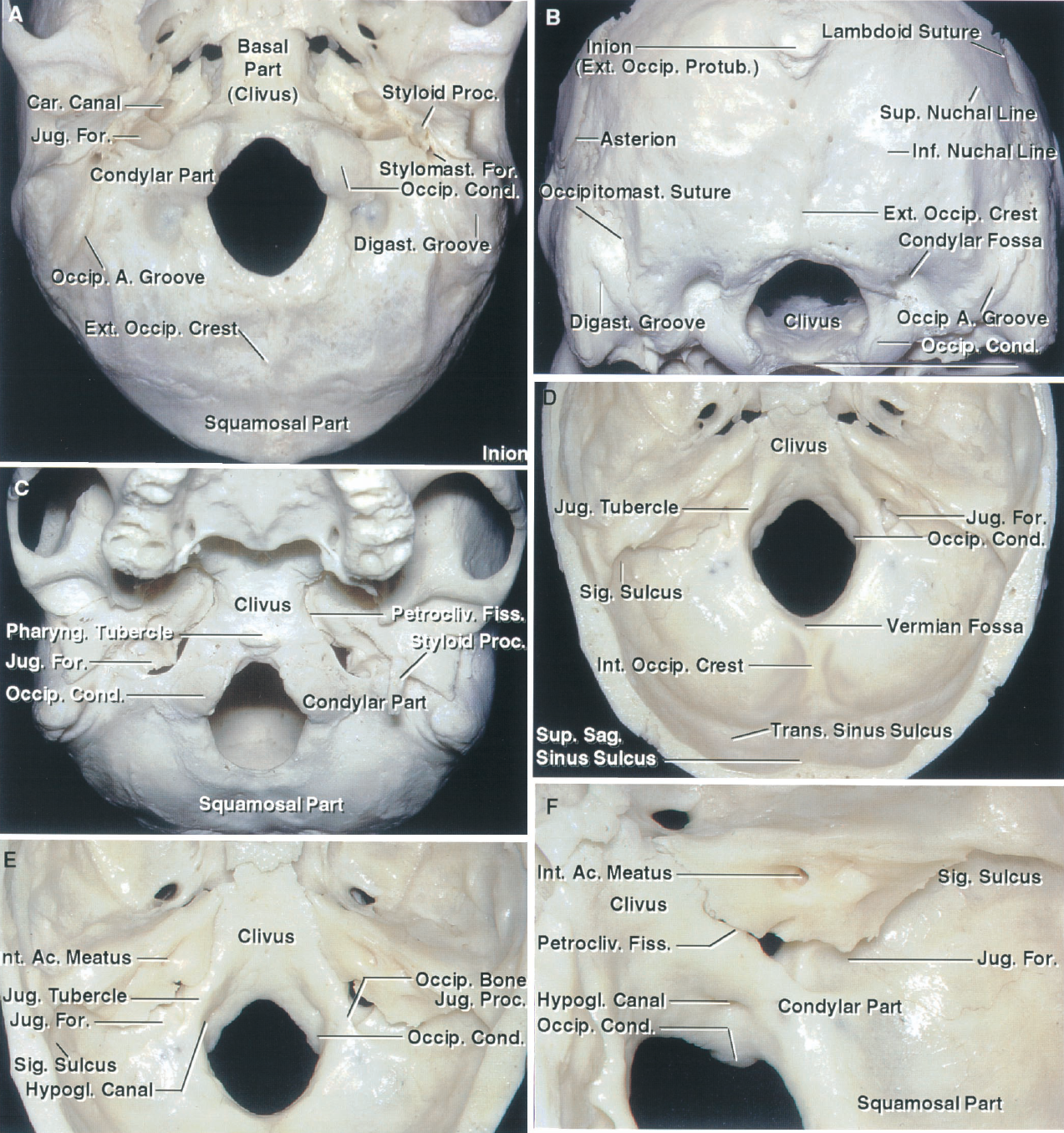 FIGURE 6.1. Occipital bone and foramen magnum. A, inferior view. B, posteroinferior view. C, anterior-inferior view. D, superior view. E, posterosuperior view. F, oblique posterosuperior view. The occipital bone surrounds the oval-shaped foramen magnum, which is wider posteriorly than anteriorly. The narrower anterior part sits above the odontoid process and it encroached on from laterally by the occipital condyles. The wider posterior part transmits the medulla. The occipital bone is divided into a squamosal part located above and behind the foramen magnum; a basal (clival) part situated in front of the foramen magnum; and paired condylar parts located lateral to the foramen magnum. The squamous part is internally concave. Its upper margin articulates with the parietal bone at the lambdoid suture, and its lower margin articulates with the mastoid portion of the temporal bone at the occipitomastoid suture. The convex external surface of the squamosal part has several prominences. The largest prominence, the external occipital protuberance (inion), is situated at the central part of the external surface. The superior nuchal line radiates laterally from the protuberance. A vertical ridge, the external occipital crest, descends from the external occipital protuberance to the midpoint of the posterior margin of the foramen magnum. The inferior nuchal lines run laterally on both sides from the midpoint of the crest. The internal surface of the squamous part is concave and has a prominence, the internal occipital protuberance, near its center. The internal surface is divided into four unequal fossae by the sulcus of the superior sagittal sinus, the internal occipital crest, and the sulci for the transverse sinuses. The internal occipital crest bifurcates above the foramen magnum to form a V-shaped ridge between the limbs of which is the vermian fossa. The basilar part of the occipital bone, which is also referred to as the clivus, is a thick quadrangular plate of bone that extends forward and upward to join the sphenoid bone just below the dorsum sellae. The superior surface of the clivus slopes upward from the foramen magnum and is concave from side to side. The clivus is separated on each side from the petrous part of the temporal bone by the petroclival fissure that ends posteriorly at the jugular foramen. The occipitomastoid suture extends posterolateral from the jugular foramen. On the inferior surface of the basilar part, a small elevation, the pharyngeal tubercle, gives attachment to the fibrous raphe of the pharynx. The condylar parts of the occipital bone, on which the occipital condyles an located, are situated lateral to the foramen magnum on the external surface. The alar tubercle, which gives attachment to the alar ligament, is situated on the medial side of each condyle. The hypoglossal canal is situated above the condyle. The condylar fossa, which may be converted into a foramen for the passage of an emissary vein, is located behind the condyle. The jugular process of the occipital bone extends laterally from the posterior half of the condyle and articulates with the jugular surface of the temporal bone. The sulcus of the sigmoid sinus crosses the superior surface of the jugular process. The jugular foramen is bordered posteriorly by the jugular process of the occipital bone and anteriorly by the jugular fossa of the petrous temporal bone. The jugular tubercle lies on the internal surface above the hypoglossal canal. A., artery; Ac., acoustic; Car., carotid; Cond., condyle; Digast., digastric; Ext., external; Fiss., fissure; For., foramen; Hypogl., hypoglossal; Inf., inferior; Jug., jugular; Occipitomast., occipitomastoid; Occip., occipital; Petrocliv., petroclival; Pharyng., pharyngeal; Proc., process; Protrub., protuberance; Sag., sagittal; Sig., sigmoid; Sup., superior; Trans., transverse.
