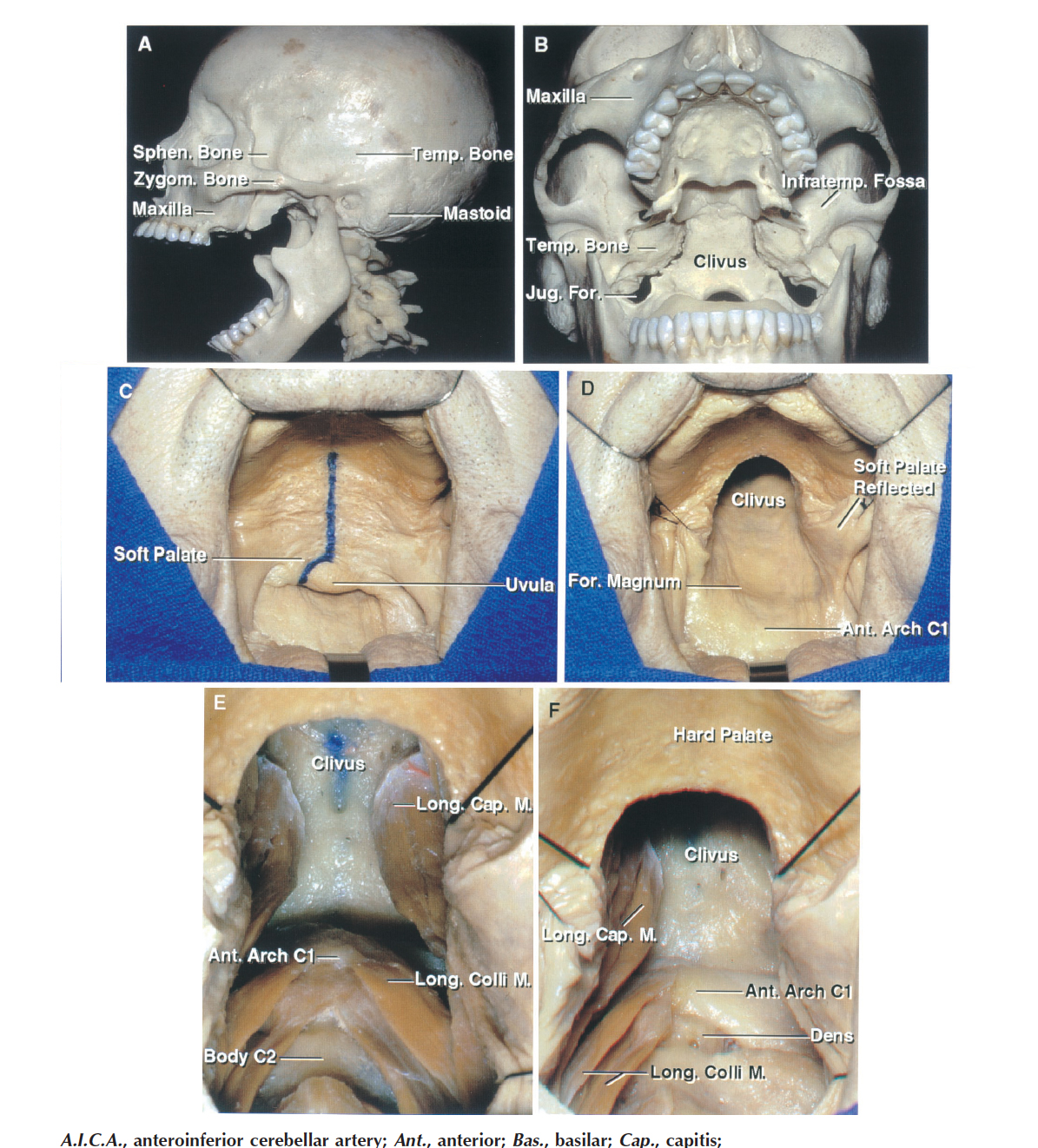 FIGURE 6.12. A–F. Transoral, transpalatal, and transmaxillary approaches to the clivus and foramen magnum. A, forced opening of the mouth permits the clivus to be exposed below the palate. B, anterior view through the open mouth. The soft palate, which extends backward from the hard palate, will block the view of the upper clivus. C, an incision has been outlined in the midline of the soft palate. D, the soft palate has been divided to expose the mucosa lining the lower clivus. E, the pharyngeal mucosa has been opened in the midline and the longus capitis and longus coli have been exposed and the longus capitis reflected laterally. 