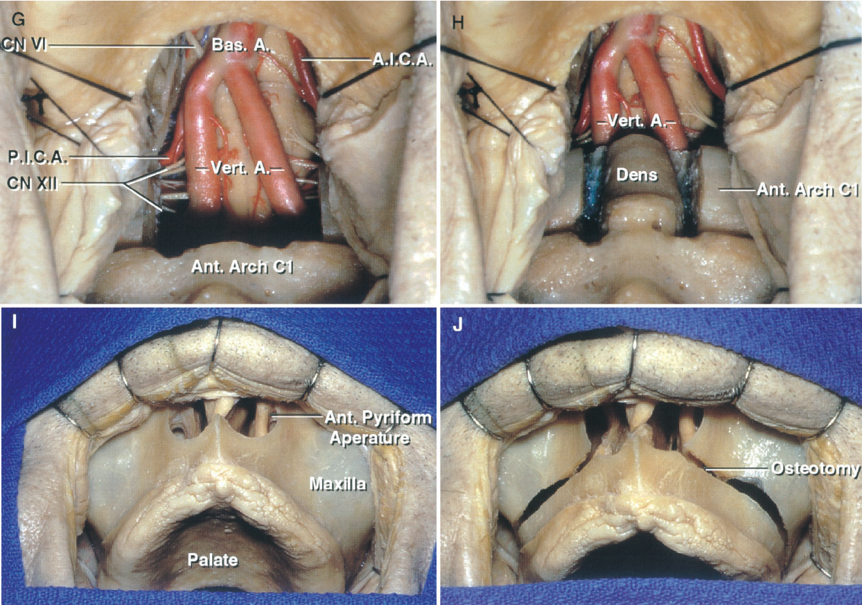 FIGURE 6.12. G–J. Transoral, transpalatal, and transmaxillary approaches to the clivus and foramen magnum. G, the lower clivus has been opened to expose both vertebral arteries, lower part of the basilar artery, right PICA, left AICA, and the abducens and hypoglossal nerves. H, the anterior arch of C1 has been removed to expose the odontoid process. I, a degloving subperiosteal dissection exposes the anterior face of the maxilla and the lower part of the anterior piriform aperture. J, the transverse maxillary (LeFort I) osteotomy extends through the maxillary sinus above the apex of the teeth and below the infraorbital canals.