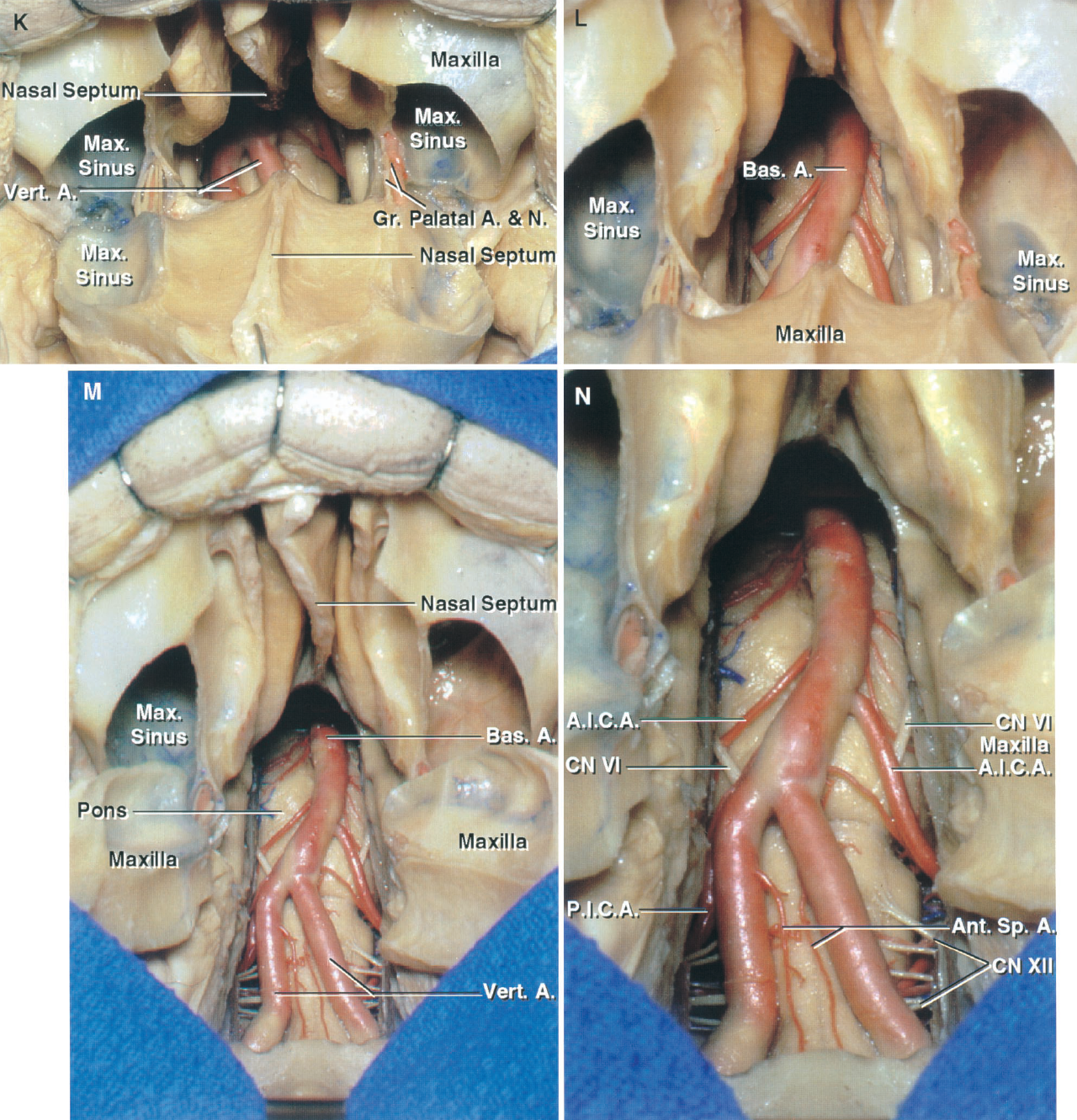 FIGURE 6.12. K–N. Transoral, transpalatal, and transmaxillary approaches to the clivus and foramen magnum. K, the lower maxilla has been displaced downward. The clival window and vertebral arteries can be seen through the exposure. L, enlarged view of the clival opening. M, the maxilla has been split vertically in the midline and the halves reflected laterally, allowing the clival opening to be extended upward. N, enlarged view of the clival exposure. The right AICA passes behind the right abducens nerve and the left AICA passes in front of the left abducens nerve.