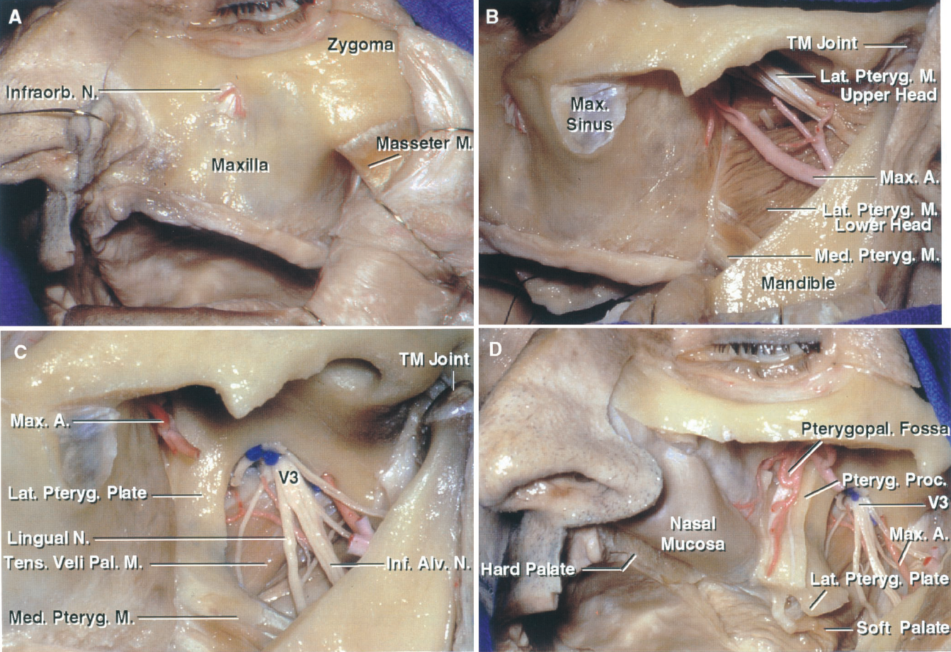 FIGURE 6.14. A–D. Lower maxillotomy route to the clivus and foramen magnum. A, the approach can be made through a degloving incision inside the mouth; however, in this case, to more fully show the anatomy, a Weber-Fergusson paranasal incision with an infraorbital extension is used to expose the anterior face of the maxilla. The infraorbital nerve has been divided, although it can usually be preserved with the degloving incision. The masseter is attached along the lower margin of the zygoma. B, the mucosal lining the maxillary sinus is exposed below the zygomatic arch. The coronoid process of the mandible is removed or reflected with the temporalis muscle to expose the medial and lateral pterygoid muscles and the maxillary artery in the infratemporal fossa. C, the lateral pterygoid muscles and a segment of the maxillary artery have been removed. Removal of the lateral pterygoid exposes the mandibular nerve and its branches in the medial part of the infratemporal fossa. D, a lower maxillectomy has been completed. In this approach, the maxilla can be folded on a vascularized pedicle of soft palate into the floor of the mouth. The pterygoid process, which forms the posterior wall of the pterygopalatine fossa, has been preserved. The nasal mucosa remains intact. The maxillary artery exits the infratemporal fossa to enter the pterygopalatine fossa. A., artery; A.I.C.A., anteroinferior cerebellar artery; Alv., alveolar; Ant., anterior; Bas., basilar; Cap., capitis; Car., carotid; Cav., cavernous; CN, cranial nerve; Eust., eustachian; Gl., gland; Inf., inferior; Infraorb., infraorbital; Int., internal; Intercav., intercavernous; Lat., lateral; Long., longus; M., muscle; Max., maxillary; Med., medial; N., nerve; Pal., palatini; Pet., petrous; Pteryg., pterygoid; Pterygopal., pterygopalatine; Tens., tensor; TM., temporomandibular; Vert., vertebral.