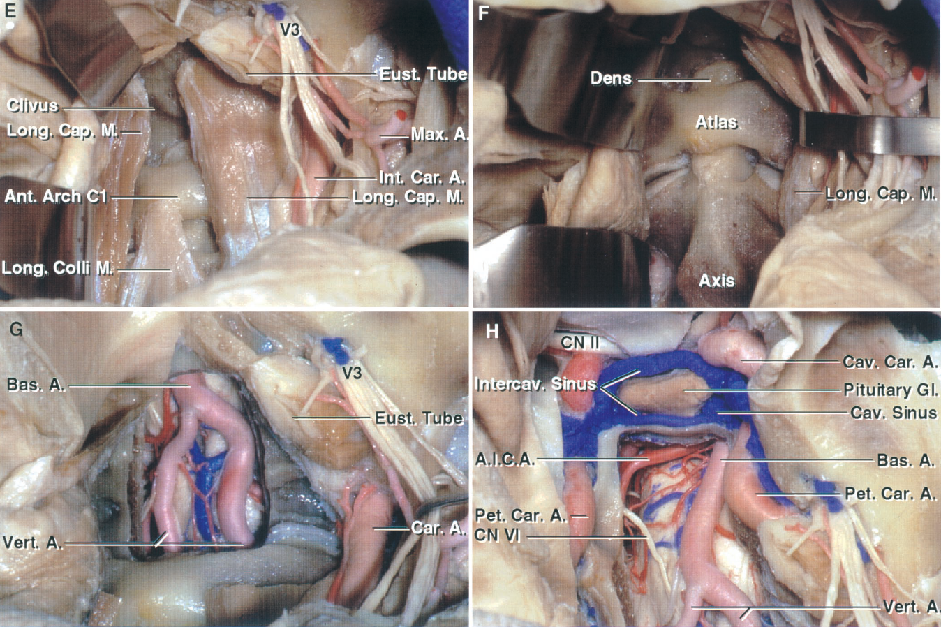 FIGURE 6.14. E–H. Lower maxillotomy route to the clivus and foramen magnum. E, the nasal mucosa has been opened and the posterior pharyngeal wall reflected to the opposite side. The longus capitis attachments have been separated from the clivus. F, the longus capitis and longus coli have been reflected laterally to expose the anterior arch of the atlas and the dens and body of the axis. G, the clivus and the dura have been opened to expose the medulla and vertebral arteries. H, the exposure has been extended upward by removing the anterior wall of the sphenoid sinus and sella. The terminal part of the petrous carotids limits the lateral exposure at the level of the clivus, and the cavernous carotids limit the lateral exposure at the level of the sphenoid sinus. The intercavernous sinuses interconnect the paired cavernous sinuses.