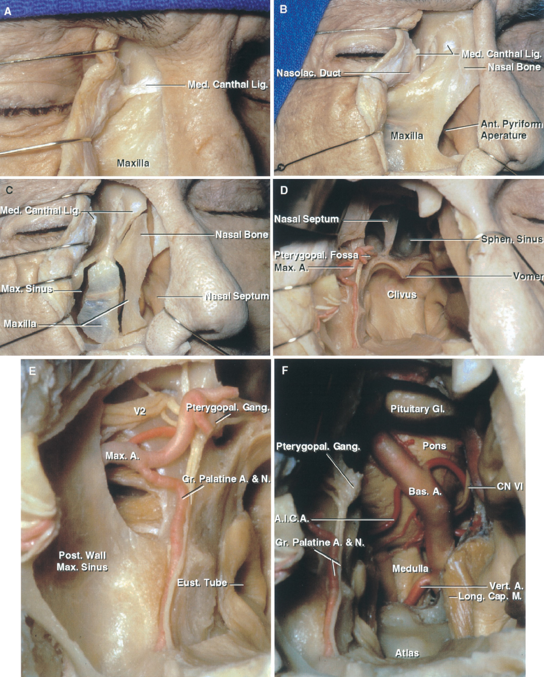 FIGURE 6.15. Medial maxillotomy approach to the clivus and foramen magnum. A, a lateral rhinotomy incision has been extended along the medial orbital rim. The medial canthal ligament has been exposed. B, the medial canthal ligament has been divided to expose the medial aspect of the orbit. The ligament can be preserved and the medial orbital wall left intact if orbital exposure is not needed. The anterior pyriform aperture is exposed. C, the osteotomies are as outlined to open the nasal cavity and medial maxilla. The medial one opens the nasal cavity and the lateral bone removal exposes the maxillary sinus. The medial maxillotomy aids in exposing the clivus. D, the exposure has been directed to the posterior nasopharyngeal wall behind which the clivus sits. The anterior wall of the sphenoid sinus has been removed, exposing the sphenoid septum. The posterior part of the nasal septum has been removed to expose the clivus below the sphenoid sinus. Removal of the medial part of the posterior wall of the maxillary sinus exposes the maxillary artery in the pterygopalatine fossa. E, enlarged view of the pterygopalatine fossa exposed by removing the medial part of the posterior wall of the maxillary sinus. The maxillary nerve and artery enter the pterygopalatine fossa. The maxillary artery is the major source of bleeding during surgery in this area. The maxillary artery enters the pterygopalatine fossa by passing through the pterygomaxillary fissure. The maxillary nerve enters the fossa by passing through the foramen rotundum and gives off communicating rami to the pterygopalatine ganglion. F, the pharyngeal mucosa has been opened, the longus capitis reflected laterally, and the clivus and dura opened to expose the basilar artery ascending in front of the pons. The pituitary gland is at the upper margin of the exposure. A., artery; A.I.C.A., anteroinferior cerebellar artery; Ant., anterior; Bas., basilar; Cap., capitis; CN, cranial nerve; Eust., eustachian; Gang., ganglion; Gl., gland; Gr., greater; Lig., ligament; Long., longus; M., muscle; Max., maxillary; Med., medial; N., nerve; Nasolac., nasolacrimal; Post., posterior; Pterygopal., pterygopalatine; Sphen., sphenoid; Vert., vertebral.