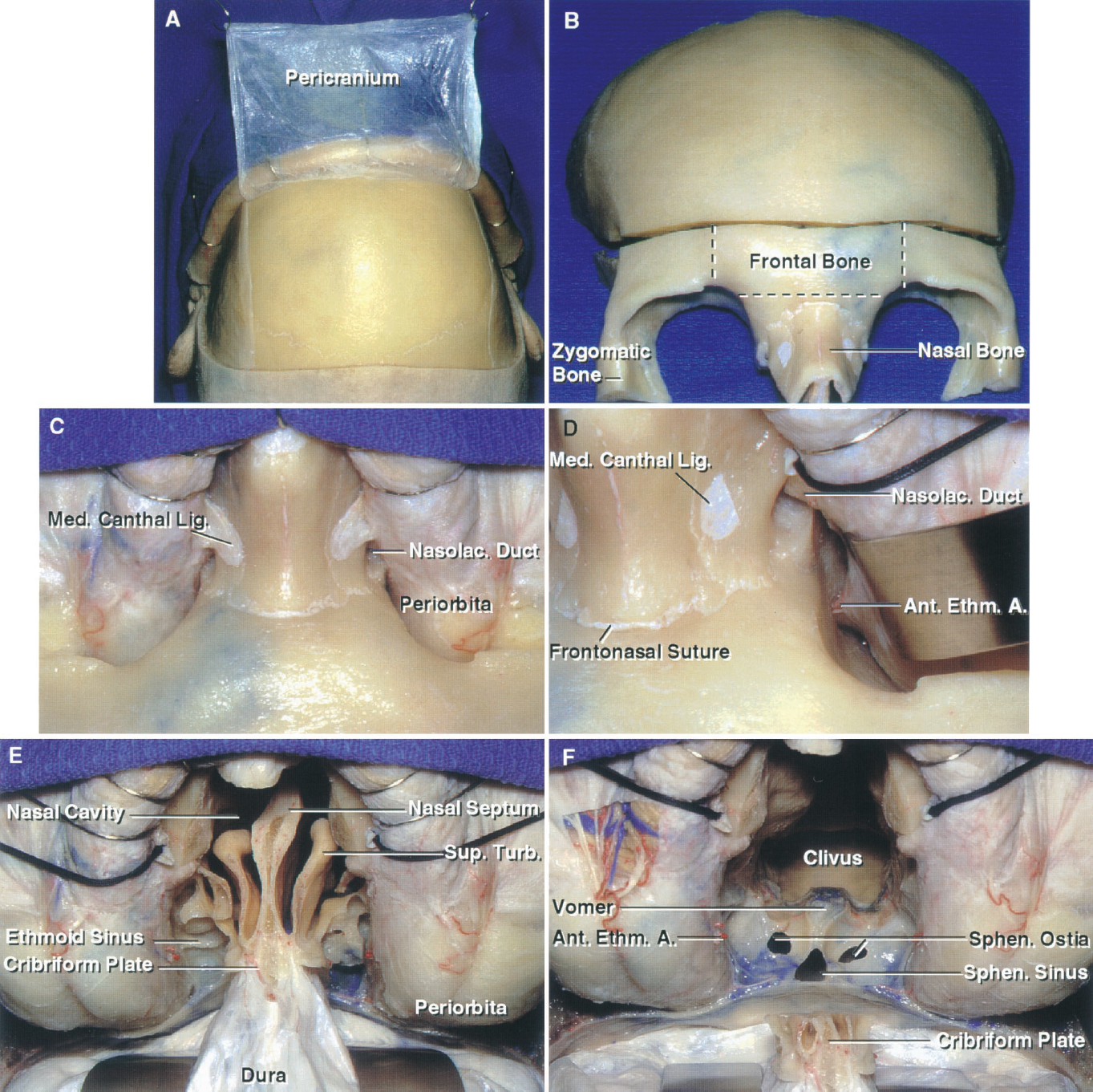 FIGURE 6.19. A–F. Relationships in the transbasal and extended frontal approaches. A, a bicoronal scalp flap has been reflected forward. The pericranium is commonly reflected as a separate layer for later use in closing the floor of the anterior cranial fossa. B, bone flap and osteotomy. The transcranial-transbasal approach uses only a bifrontal craniotomy bordering the floor of the anterior cranial fossae without the osteotomy. A large bifrontal craniotomy and a fronto-orbitozygomatic osteotomy have been completed. The osteotomized segment may extend through the nasal bone and lateral orbital rim, but for most clival lesions a more limited bone flap and osteotomy (dotted lines) will usually suffice and can be tailored as needed to deal with involvement of the nasal cavity, paranasal sinuses, or orbit. C, the periorbita has been separated from the walls of the orbit in preparation for the osteotomies. Division of the medial canthal ligament is not necessary for most lesions, but may be required for lesions extending into the lower nasal cavity or orbit. The ligaments should be re-approximated at the end of the procedure. D, the right medial canthal ligament has been divided and the orbital contents retracted laterally to expose the nasolacrimal duct and the anterior ethmoidal branch of the ophthalmic artery at the anterior ethmoidal foramen. E, the osteotomies have been completed and the frontal dura elevated. The dura remains attached at the cribriform plate. The upper part of both orbits are exposed. F, an osteotomy around the cribriform plate leaves it attached to the dura and olfactory bulbs, a maneuver that has been attempted to preserve olfaction, but is infrequently successful. The anterior face of the sphenoid sinus and both sphenoid ostia are exposed between the orbits. A., artery; A.C.A., anterior cerebellar artery; A.I.C.A., anteroinferior cerebellar artery; Ant., anterior; Bas., basilar; Car., carotid; CN, cranial nerve; Ethm., ethmoidal; Gl., gland; Lam., lamina; Lig., ligament; M.C.A., middle cerebral artery; Med., medial; Nasolac., nasolacrimal; Pit., pituitary; Sphen., sphenoid; Sphenopal., sphenopalatine; Sup., superior; Term., terminalis; Turb., turbinates; Vert., vertebral.