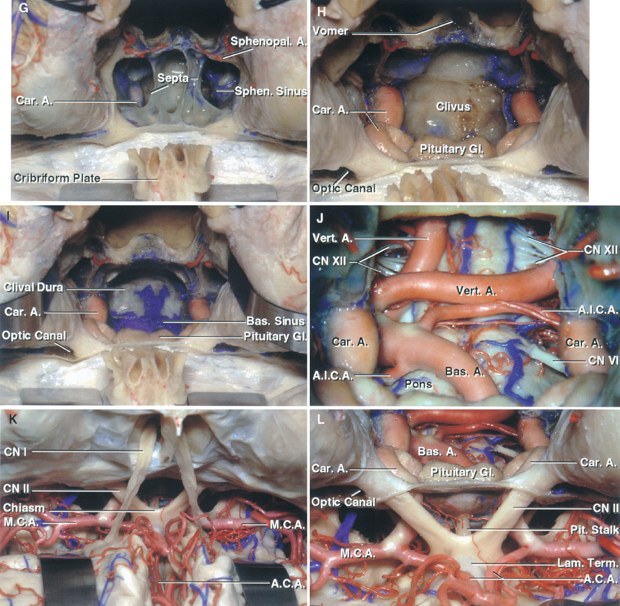 FIGURE 6.19. G–L. Relationships in the transbasal and extended frontal approaches. G, the sphenoid sinus has been opened to expose the septa within the sinus. The sphenopalatine arteries cross the anterior face of the sphenoid. H, the septa within the sphenoid sinus, the sellar floor, and the lateral sinus wall have been removed to expose the cavernous carotid arteries, pituitary gland, and optic canals. I, the clivus has been opened to expose the dura facing the brainstem. The basilar sinus, which interconnects the posterior parts of the cavernous sinus, is situated between the layers of dura on the upper clivus. J, the clivus has been opened to expose the tortuous vertebral arteries, which join to form the basilar artery at the left lateral margin of the clival opening. Both AICA origins are exposed. A vein splits the right abducens nerve into two bundles adjacent to the brainstem. K, the frontal dura has been opened and the frontal lobes elevated to expose the olfactory and optic nerves, the internal carotid, and the anterior and middle cerebral arteries. L, enlarged view. The subfrontal and clival openings are separated by the sella and pituitary gland. The lateral limit of the clival exposure is defined by the internal carotid arteries and optic nerves. The lamina terminalis is exposed above the optic chiasm.