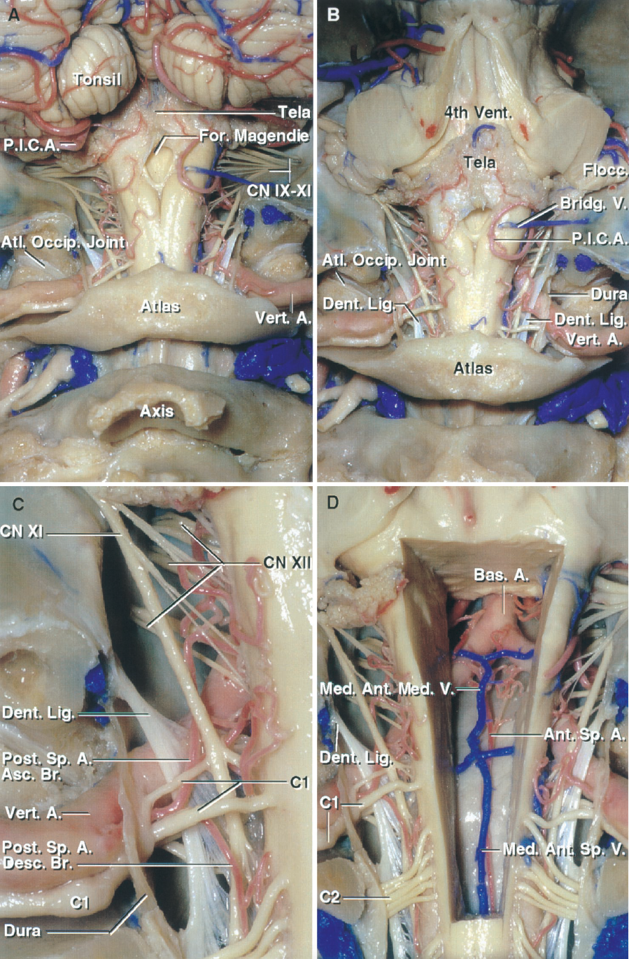 FIGURE 6.3. A–D. Foramen magnum. Posterior view. Stepwise dissection. A, the cerebellar tonsils, the foramen of Magendie, and lower part of the fourth ventricle are situated above the foramen magnum. The vertebral artery penetrates the dura below the foramen magnum and ascends through the foramen in front of the dentate ligament and accessory nerves. The glossopharyngeal, vagus, and accessory nerves pass through the jugular foramen, which is located lateral to the anterior half of the foramen magnum. B, the cerebellum has been removed. The vertebral arteries pass through the foramen magnum to reach the front of the medulla. C, enlarged view of the left half of the foramen magnum. The vertebral artery passes behind and below the atlanto-occipital joint, penetrates the dura, and passes in front of the dentate ligament and accessory nerve. The rostral end of the dentate ligament attaches to