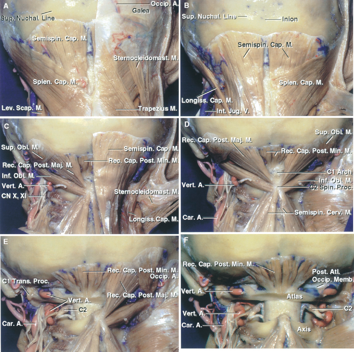 FIGURE 6.5. Suboccipital muscles. Stepwise dissection. A, the right trapezius and sternocleidomastoid have been preserved. The left trapezius and sternocleidomastoid have been reflected along with the galea aponeurotica to expose the underlying semispinalis capitis, splenius capitis, and levator scapulae. B, the right sternocleidomastoid and trapezius have been reflected to expose the splenius capitis. The left splenius capitis has been removed to expose the underlying semispinalis and longissimus capitis. C, the right splenius capitis has been removed to expose the semispinalis and longissimus capitis. The left semispinalis and longissimus capitis have been removed to expose the suboccipital triangle formed by the superior oblique, which passes from the C1 transverse process to the occipital bone, the inferior oblique, which extends from the transverse process of C1 to the spinous process of C2, and the rectus capitis posterior major, which extends from the occipital bone below the inferior nuchal line to the spinous process of C2. The vertebral artery courses in the depths of the suboccipital triangle as it passes behind the superior facet of C1 and across the upper edge of the posterior atlantal arch. D, both semispinalis capitis muscles have been reflected laterally to expose the suboccipital triangles bilaterally. E, the muscles forming the left suboccipital triangle have been removed. The vertebral artery ascends slightly lateral from the transverse process of C2 to reach the transverse process of C1 and turns medially behind the superior facet of C1 to reach the upper surface of the posterior arch of C1. The C2 ganglion is located between the posterior arch of C1 and the lamina of C2. The dorsal ramus of C2 produces a medial branch that forms the majority of the greater occipital nerve. F, the muscles forming both suboccipital triangles have been removed. The rectus capitis posterior minor, which extends from the posterior arch of C1 to the occipital bone below the inferior nuchal line, has been preserved. The vertebral arteries cross the posterior arch of the atlas and penetrate the posterior atlanto-occipital membrane to reach the dura. A., artery; Atl., atlanto-; Cap., capitis; Car., carotid; CN, cranial nerve; Inf., inferior; Int., internal; Jug., jugular; Lev., levator; Longiss., longissimus; M., muscle; Maj., major; Memb., membrane; Min., minor; Obl., oblique; Occip., occipital; Post., posterior; Proc., process; Rec., rectus; Scap., scapulae; Semispin., semispinalis; Spin., spinalis; Splen., splenius; Sternocleidomast., sternocleidomastoid; Sup., superior; Trans., transverse; V., vein; Vert., vertebral.