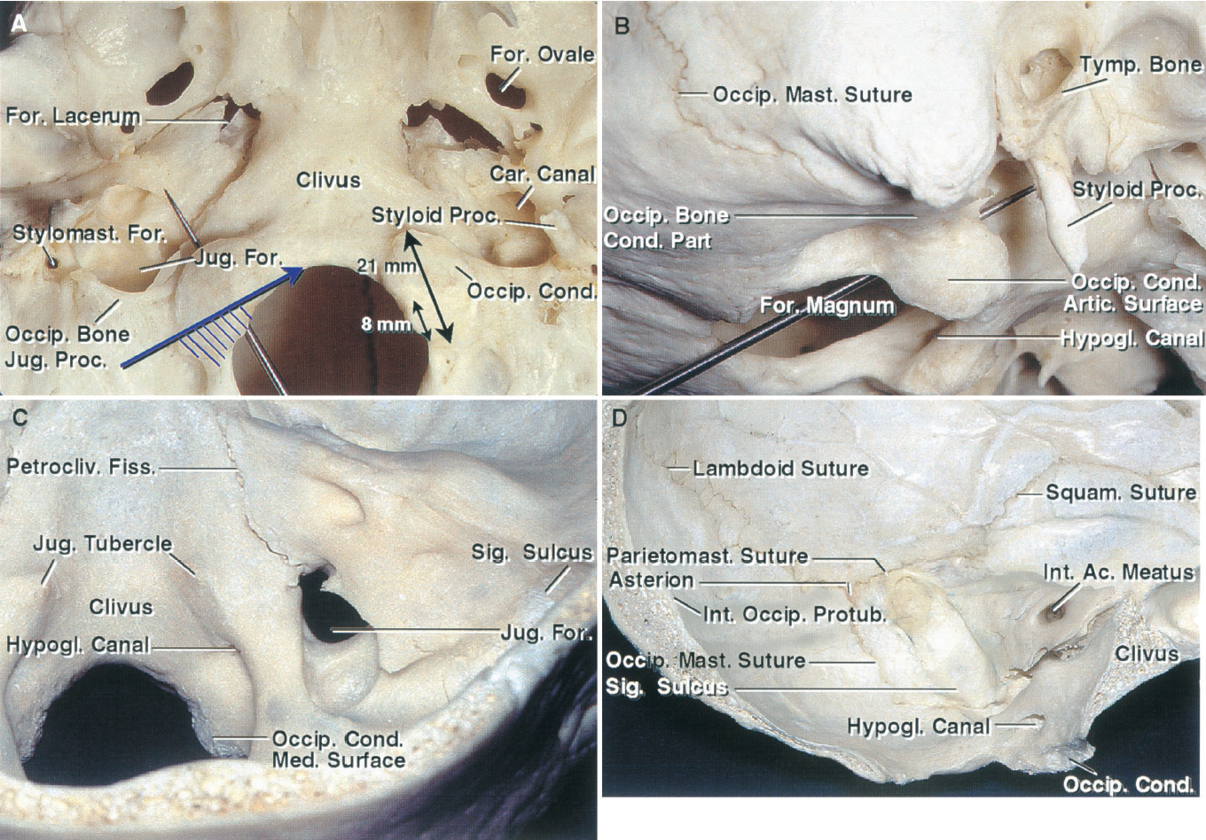 FIGURE 7.1. Osseous relationships. A, inferior view of the occipital condyles and foramen magnum. The occipital condyles are ovoid structures located along the lateral margin of the anterior half of the foramen magnum. Their articular surfaces are convex, face downward and laterally, and articulate with the superior facet of C1. A probe inserted through the hypoglossal canal passes forward approximately 45 degrees from the midsagittal plane in an anterolateral direction. The hypoglossal canal is located above the middle third of the occipital condyle and is directed from posterior to anterior and from medial to lateral. The intracranial end of the hypoglossal canal (small oval) is located approximately 5 mm above the junction of the posterior and middle third of the occipital condyle and approximately 8 mm from the posterior edge of the condyle. The extracranial end of the canal is located approximately 5 mm above the junction of the anterior and middle third of the condyle. The average length of the longest axis of the condyle is 21 mm. The large arrow shows the direction of the transcondylar approach and the cross-hatched area shows the portion of the occipital condyle that can be removed without exposing the hypoglossal nerve in the hypoglossal canal. The condylar fossa is frequently the site of a canal, the condylar canal, which transmits the posterior condylar emissary vein that connects the vertebral venous plexus with the sigmoid sinus just proximal to the jugular bulb. The condylar canal passes above and usually does not communicate with the hypoglossal canal. The jugular process of the occipital bone extends laterally from the posterior half of the occipital condyle to form the posterior margin of the jugular foramen. The portion of the jugular process located immediately behind the jugular foramen serves as the site of attachment for the rectus capitis lateralis muscle. The stylomastoid foramen is situated lateral to the jugular foramen. The styloid process is located anterior and slightly medial to the stylomastoid foramen. B, inferolateral view. A probe has been passed through the hypoglossal canal, which passes above occipital condyle. From its intracranial to its extracranial end it is directed forward, lateral, and slightly upward. C, superior view. The occipital condyle projects downward from the lateral margin of the anterior half of the foramen magnum. The intracranial entrance of the hypoglossal canal is located above the condyle. The jugular tubercles are located above and anterior to the hypoglossal canals. The jugular process of the occipital bone extends laterally from the condyles to form the posterior margin of the jugular foramen. The sigmoid sinus crosses the occipitomastoid suture and turns in a hooklike groove on the upper surface of the jugular process to reach the jugular foramen. Drilling the occipital condyle increases access to the anterolateral margin of the foramen magnum. Drilling in a supracondylar location below the hypoglossal canal accesses the lateral edge of the clivus. Drilling in the supracondylar location above the hypoglossal canal accesses the jugular tubercle, which projects upward and often blocks visualization of the junction of the middle and lower clivus and the region of the pontomedullary junction during the far-lateral approach. Drilling the jugular process in a paracondylar location accesses the posterior margin of the jugular bulb, which is situated in the sigmoid portion of the jugular foramen. D, medial aspect of the occipital condyle and supracondylar region. The inner surface of the mastoid portion of the temporal bone is grooved by the sulcus of the sigmoid sinus. The asterion, the site of the junction of the lambdoid, parietomastoid, and the occipitomastoid sutures, is an important landmark used to define the transition between the transverse and sigmoid sinuses. The sigmoid sulcus crosses the occipitomastoid suture just behind the jugular foramen. The intracranial end of the hypoglossal canal is located above the junction of the posterior and middle thirds of the occipital condyle. The external occipital protuberance is located an average of 2 cm below the apex of the internal occipital protuberance and 1 cm below the lower margin of the torcular herophili. The parietal notch, located at the junction of the squamosal and parietomastoid sutures, defines the upper limit of the petrous portion of the temporal bone and the floor of the posterior portion of the middle fossa. The midportion of the parietomastoid suture approximates the anterior edge of the junction of the transverse and sigmoid sinuses. Ac., acoustic; Artic., articular; Car., carotid; Cond., condyle; Fiss., fissure; For., foramen; Hypogl., hypoglossal; Int., internal; Jug., jugular; Mast., mastoid; Med., medial; Occip., occipital; Parietomast., parietomastoid; Petrocliv., petroclival; Proc., process; Protub., protuberance; Sig., sigmoid; Squam., squamosal; Stylomast., stylomastoid; Tymp., tympanic.