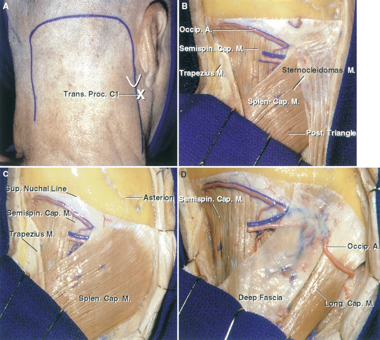 FIGURE 7.2. A–D. Far-lateral and transcondylar approach. A, a suboccipital scalp flap is commonly selected for the far-lateral exposure. The medial limb extends downward in the midline so that a wide upper cervical laminectomy can be completed if needed. The lateral limb extends below the C1 transverse process, which can be palpated between the mastoid tip and the angle of the jaw to access the vertebral artery as it ascends through the C1 transverse process. In this dissection, the muscles are reflected separately to show their anatomy; however, at an operation, the muscles superficial to the suboccipital triangle can be reflected from the suboccipital area in a single layer with the scalp flap, leaving a cuff of suboccipital muscle and fascia attached along the superior nuchal line to aid in closure. B, the scalp flap has been reflected to expose the sternocleidomastoid and trapezius, the edges of which form the margins of the posterior triangle of the neck. The splenius and semispinalis capitis are in the floor of the triangle. C, the sternocleidomastoid has been detached from the lateral part of the superior nuchal line and reflected laterally to expose the splenius capitis, which is attached just below the line. The asterion, located at the junction of the lambdoid, occipitomastoid, and parietomastoid sutures, most commonly overlies the lower half of the junction of the transverse and sigmoid sinuses. D, the splenius capitis has been reflected to expose the longissimus capitis and deep cervical fascia. The occipital artery may pass superficial or deep to the longissimus capitis. A., artery; Atl., atlanto; Br., branch; Cap., capitis; CN, cranial nerve; Dent., dentate; Digast., digastric; Dors., dorsal; Gang., ganglion; Hypogl., hypoglossal; Inf., inferior; Lat., lateralis; Lev., levator; Lig., ligament; Long., longissimus; M., muscle; Maj., major; Mas., mastoid; Memb., membrane; Men., meningeal; Min., minor; Musc., muscular; Obl., oblique; Occip., occipital; P.I.C.A., posteroinferior cerebellar artery; Plex., plexus; Post., posterior; Proc., process; Rec., rectus; Scap., scapula; Semispin., semispinalis; Splen., splenius; Suboccip., suboccipital; Sup., superior; Trans., transverse; Vent., ventral; Vert., vertebral.
