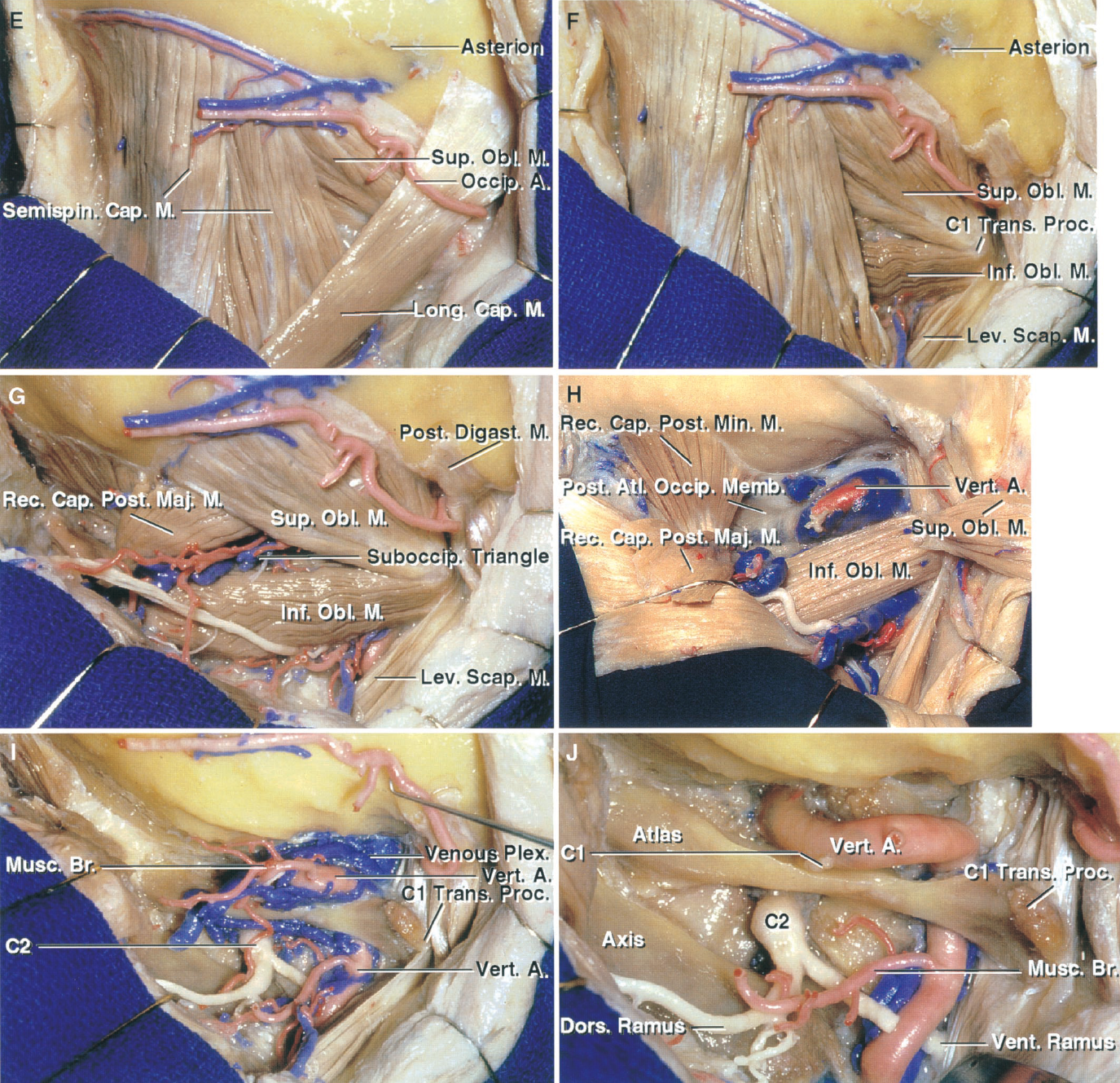 FIGURE 7.2. E–J. Far-lateral and transcondylar approach. E, the fascia has been removed to expose the occipital artery passing behind the superior oblique and semispinalis. F, the longissimus capitis has been reflected to expose the attachment of the superior and inferior oblique muscles to the C1 transverse process. G, the suboccipital triangle, in the depths of which the vertebral artery courses behind the atlanto-occipital joint and across the posterior arch of C1, is situated in the depths of the area between the superior and inferior oblique and the rectus capitis posterior major. H, the superior oblique muscle has been reflected laterally and the rectus capitis posterior major muscle inferomedially. The floor of the suboccipital triangle is formed by the posterior atlanto-occipital membrane and the posterior arch of the atlas. The vertebral artery and the C1 nerve root, which are surrounded by the vertebral venous plexus, course along the upper surface of the posterior arch of the atlas. I, the muscles forming the margins of the suboccipital triangle have been reflected to expose the vertebral artery ascending through the C1 transverse process and behind the atlanto-occipital joint and the surrounding venous plexus. J, the venous plexus around the vertebral artery has been removed. The vertebral artery gives off muscular branches, passes medially behind the atlanto-occipital joint and above the posterior arch of C1, and turns upward and anterior to penetrate the dura.
