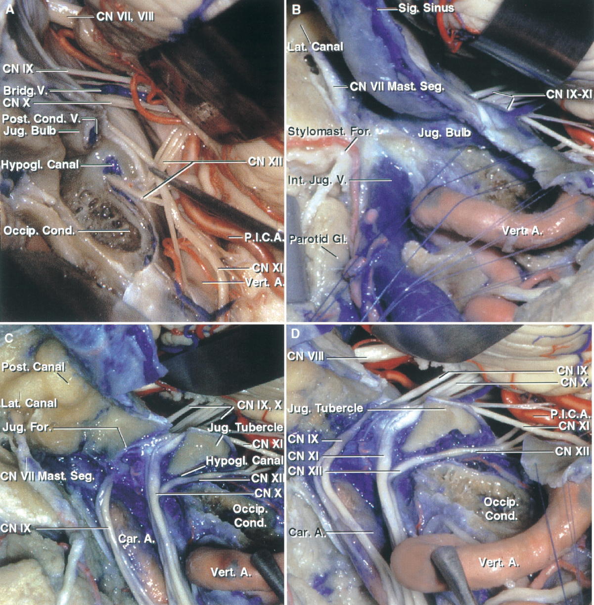 FIGURE 7.4. Relationships in the transcondylar, supracondylar, and paracondylar exposures. A, a left suboccipital craniectomy has been completed and the dura opened. The nerves entering the jugular foramen have been exposed. Bone has been removed above the occipital condyle to expose the hypoglossal nerve entering the hypoglossal canal. A bridging vein passes from the lateral aspect of the medulla to the jugular bulb. B, the rectus capitis lateralis has been detached from the cranial base and the jugular process of the occipital bone, which forms the posterior margin of the jugular foramen, has been removed to expose the jugular bulb. The posterior belly of the digastric muscle has been reflected forward and a mastoidectomy completed to expose the mastoid segment of the facial nerve. C, the jugular bulb and adjoining segment of the internal jugular vein have been removed to expose the glossopharyngeal, vagus, and accessory nerves passing through the jugular foramen and descending behind the internal carotid artery. The cortical bone lining the hypoglossal canal has been removed to expose the hypoglossal nerve and the venous plexus in the canal. The hypoglossal nerve joins the nerves exiting the jugular foramen to descend in the carotid sheath. A mastoidectomy has been completed to expose the bony capsule of the semicircular canals and the mastoid segment of the facial nerve. D, enlarged view of the nerves passing through the hypoglossal canal and jugular foramen in the supracondylar and paracondylar areas. A., artery; Bridg., bridging; Car., carotid; CN, cranial nerve; Cond., condyle; For., foramen; Gl., gland; Hypogl., hypoglossal; Int., internal; Jug., jugular; Lat., lateral, lateralis; Occip., occipital; P.I.C.A., posteroinferior cerebellar artery; Post., posterior; Seg., segment; Sig., sigmoid; Stylomast., stylomastoid; Vert., vertebral.