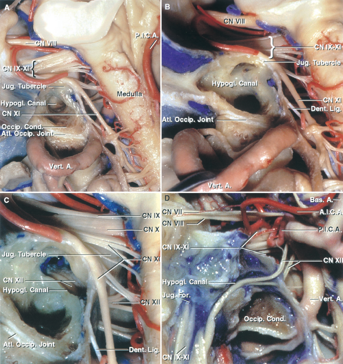 FIGURE 7.5. Posterior view of the left cerebellopontine angle. A, the glossopharyngeal, vagus, accessory, and hypoglossal nerves arise from the medulla. The hypoglossal canal has been exposed by drilling the cancellous bone above the occipital condyle. The posterior root of the transverse process of C1 has been removed. The accessory nerve crosses the jugular tubercle, the latter acting as a trochlea around which the accessory nerve courses to reach the jugular foramen. B, enlarged view. The area above the occipital condyle has been drilled to further expose the cortical bone around the hypoglossal canal. The atlanto-occipital joint has been preserved. C, the cortical bone lining the hypoglossal canal has been opened to expose the hypoglossal nerve and the hypoglossal venous plexus in the canal. D, anterior view. The anterior surface of the posterior fossa and the anterior wall of the hypoglossal canal have been removed to expose the hypoglossal nerve in its canal. The rootlets of the hypoglossal nerve originate ventral to the inferior olive and join before exiting the hypoglossal canal. The glossopharyngeal, vagus, and accessory nerves penetrate the dura on the medial side of the jugular bulb. The hypoglossal nerve exits the hypoglossal canal on the medial side of the jugular foramen. A., artery; A.I.C.A., anteroinferior cerebellar artery; Atl., atlanto; Bas., basilar; CN, cranial nerve; Cond., condyle; Dent., dentate; For., foramen; Hypogl., hypoglossal; Jug., jugular; Lig., ligament; Occip., occipital; P.I.C.A., posteroinferior cerebellar artery; Vert., vertebral.