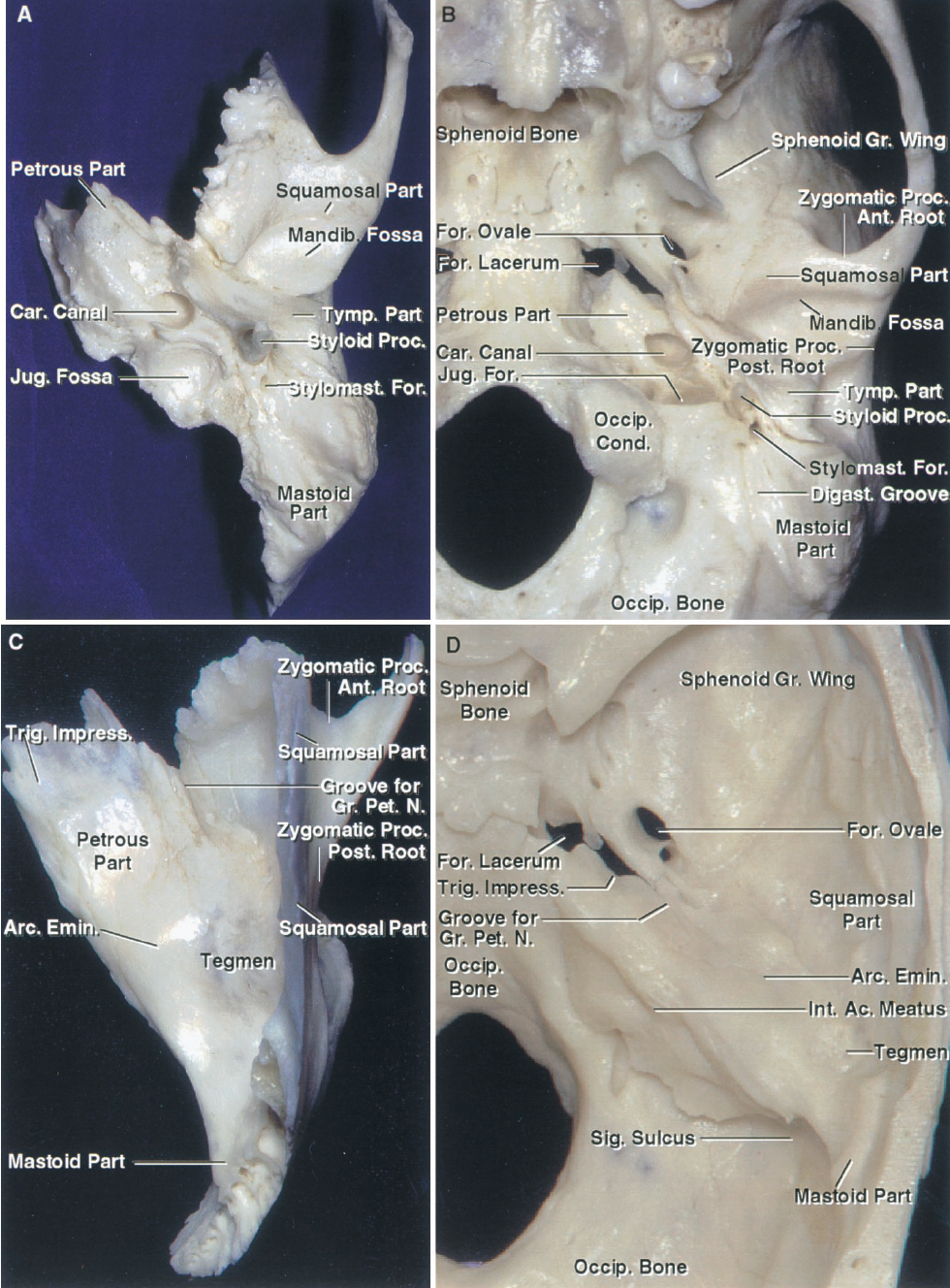 FIGURE 8.1. Temporal bone. A and B, inferior views. A, the temporal bone has a squamosal part, which forms some of the floor and lateral wall of the middle cranial fossa. It is also the site of the mandibular fossa in which the mandibular condyle sits. The tympanic part forms the anterior, lower, and part of the posterior wall of the external canal, part of the wall of the tympanic cavity, the osseous portion of the eustachian tube, and the posterior wall of the mandibular fossa. The mastoid portion contains the mastoid air cells and mastoid antrum. The petrous part is the site of the auditory and vestibular labyrinth, the carotid canal, the internal acoustic meatus, and the facial canal. The petrous part also forms the anterior wall and the dome of the jugular fossa. The styloid part projects downward and serves as the site of attachment of three muscles. B, inferior view of the temporal and surrounding bones. The squamosal and petrous parts articulate anteriorly with the greater wing of the sphenoid. The petrous apex faces the foramen lacerum and is separated from the clival part of the occipital bone by the petroclival fissure. The occipital bone joins with the petrous part of the temporal bone to form the jugular foramen. The mandibular fossa is located between the anterior and posterior roots of the zygomatic process. C and D, superior views. C, the medial part of the upper surface is the site of the trigeminal impression in which Meckel's cave sits. Farther laterally is the prominence of the arcuate eminence overlying the superior semicircular canal. Anterolateral to the arcuate eminences is the tegmen, a thin plate of bone overlying the mastoid antrum and epitympanic area. The temporal bone articulates anteriorly with the sphenoid bone, above with the parietal bone, and posteriorly with the occipital bone. The zygomatic process of the squamosal part has an anterior and a posterior root between which, on the lower surface, is located the mandibular canal. D, t