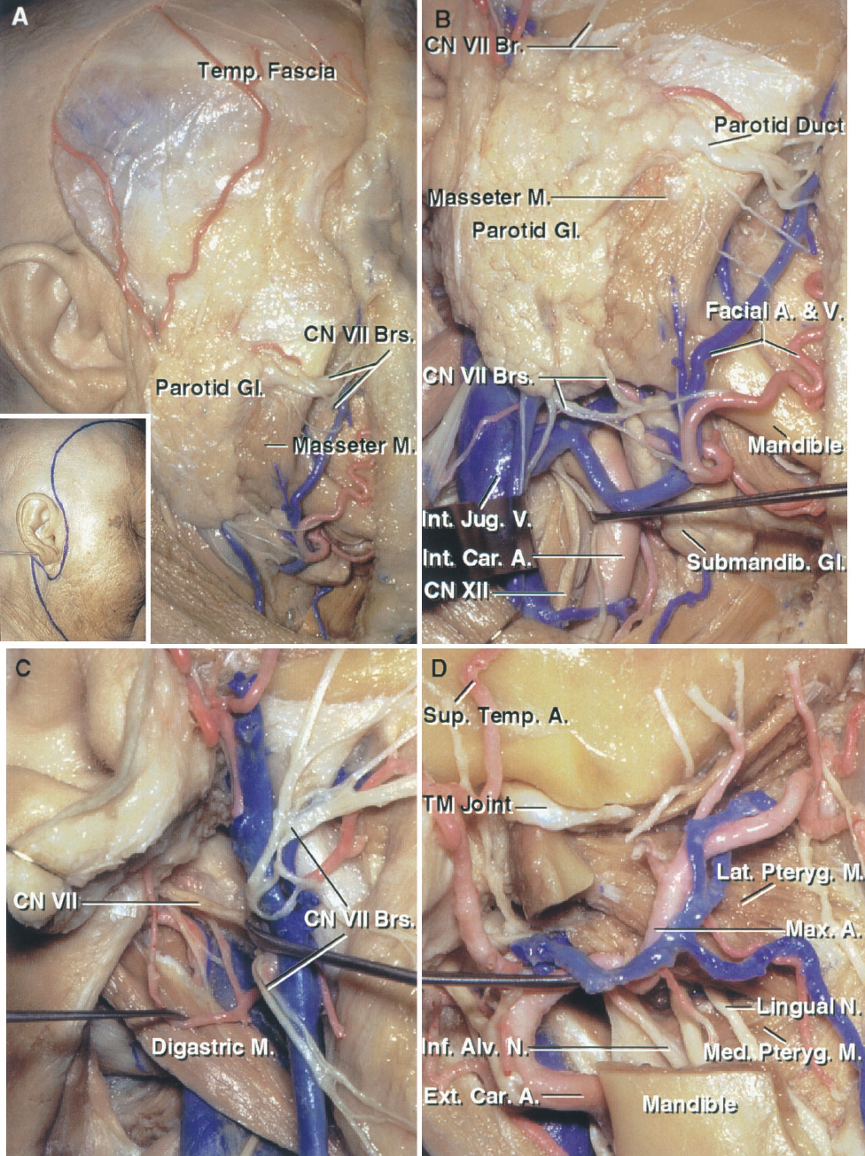 FIGURE 8.10. A–D. Preauricular subtemporal-infratemporal fossa approach. A, the scalp flap has been reflected forward. The flap is positioned so that a neck dissection as well as a frontotemporal craniotomy can be completed. The scalp flap has been reflected forward while protecting the facial nerve and its branches. The neck dissection has been completed below the parotid gland. The facial nerve branches passing deep to the parotid have been preserved. B, the dissection has been carried around the parotid gland to expose the branches of the facial nerve. The internal jugular vein and internal carotid artery are exposed below the gland. C, the parotid gland has been removed to expose the branches of the facial nerve distal to the stylomastoid foramen. D, a segment of the mandibular ramus has been removed, leaving the mandibular condyle in the mandibular fossa, to expose the maxillary artery and pterygoid muscles in the infratemporal fossa. Branches of the third trigeminal division pass between the lateral and medial pterygoid muscles. The inferior alveolar nerve descends to enter the inferior alveolar foramen and canal.