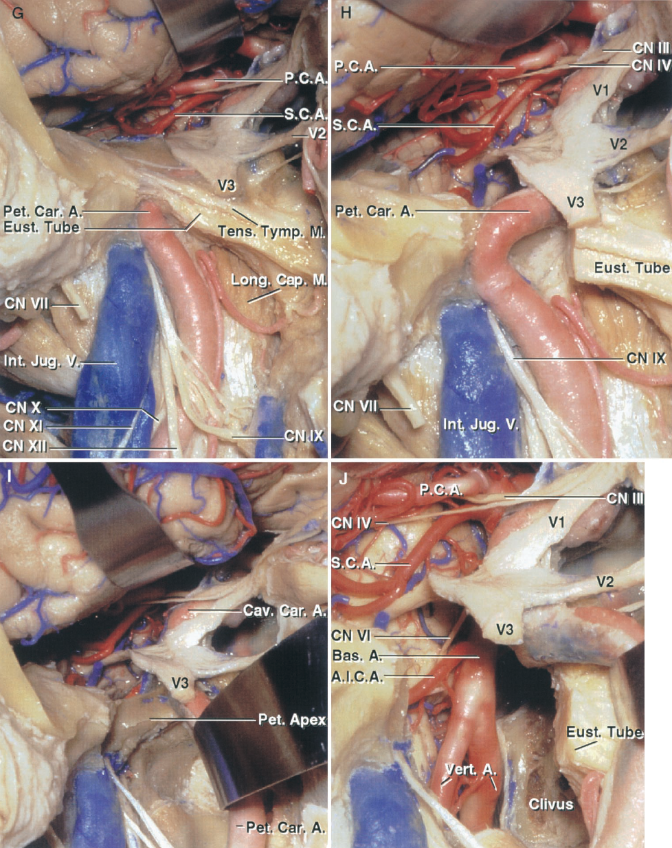 FIGURE 8.10. G–J. Preauricular subtemporal- infratemporal fossa approach. G, the floor of the middle fossa has been resected back to the level of the tensor tympani muscle and eustachian tube, and the petrous carotid artery. The nerves exiting the jugular foramen and hypoglossal canal pass laterally between the internal carotid artery and internal jugular vein to reach their end organs. H, the eustachian tube and tensor tympani have been resected and the bone lateral to the foramen ovale removed. This exposes the full length of the petrous carotid. I, the petrous carotid has been reflected forward out of the carotid canal to expose the petrous apex medial to the jugular foramen and lateral wall of the clivus. J, the petrous apex and adjacent part of the clivus medial to the jugular foramen and cochlea have been removed and the dura opened to expose the junction of the vertebral and basilar arteries and the origin of the AICA.