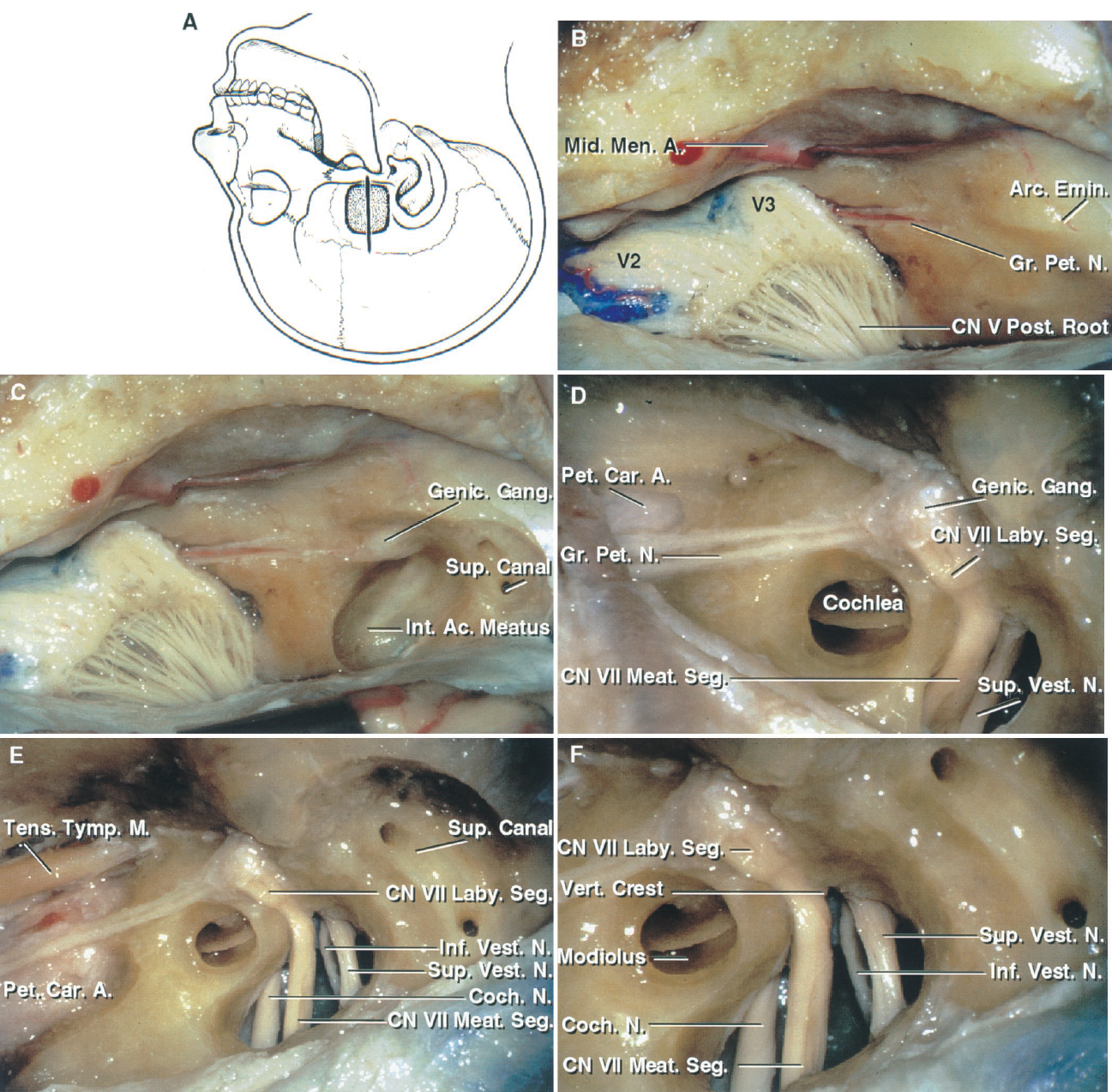 FIGURE 8.11. Middle fossa approach to the internal acoustic meatus. A, the vertical line shows the site of the scalp incision and the stippled area outlines the bone flap bordering the middle fossa floor. B, the dura has been elevated to expose the middle meningeal artery, the greater petrosal nerve, and the arcuate eminence. C, bone has been removed to expose the junction of the greater petrosal nerve and the geniculate ganglion. A portion of the upper wall of the internal meatus has been removed. The upper surface of the arcuate eminence has been drilled to expose the superior semicircular canal. In the middle fossa approach, for an acoustic neuroma, the cochlea and semicircular canal are not opened, as seen in this dissection illustrating some of the important structures that are to be avoided in opening the meatus. D, enlarged view. The cochlea, located below the middle fossa floor in the angle between the facial and greater petrosal nerves, has been opened in the area anteromedial to the meatal fundus. The roof of the meatus has been opened to expose the superior vestibular nerve, which innervates the ampullae of the superior and lateral canals and the meatal segment of the facial nerve. E, the vestibule and semicircular canals are located posterolateral and the cochlea is located anteromedial to the meatal fundus. The tensor tympani is layered along the anterior edge and the greater petrosal nerve above the petrous carotid. F, enlarged view. The vertical crest (Bill's bar) separates the facial and superior vestibular nerves at the meatal fundus. The superior and inferior vestibular nerves are located posteriorly and the facial and cochlear nerves anteriorly in the meatus, with the cochlear nerve passing below the facial nerve to enter the modiolus. The labyrinthine segment of the facial nerve courses superolateral to the cochlea. A., artery; Ac., acoustic; Arc., arcuate; Car., carotid; CN, cranial nerve; Coch., cochlear; Emin., eminence; Gang., ganglion; Genic